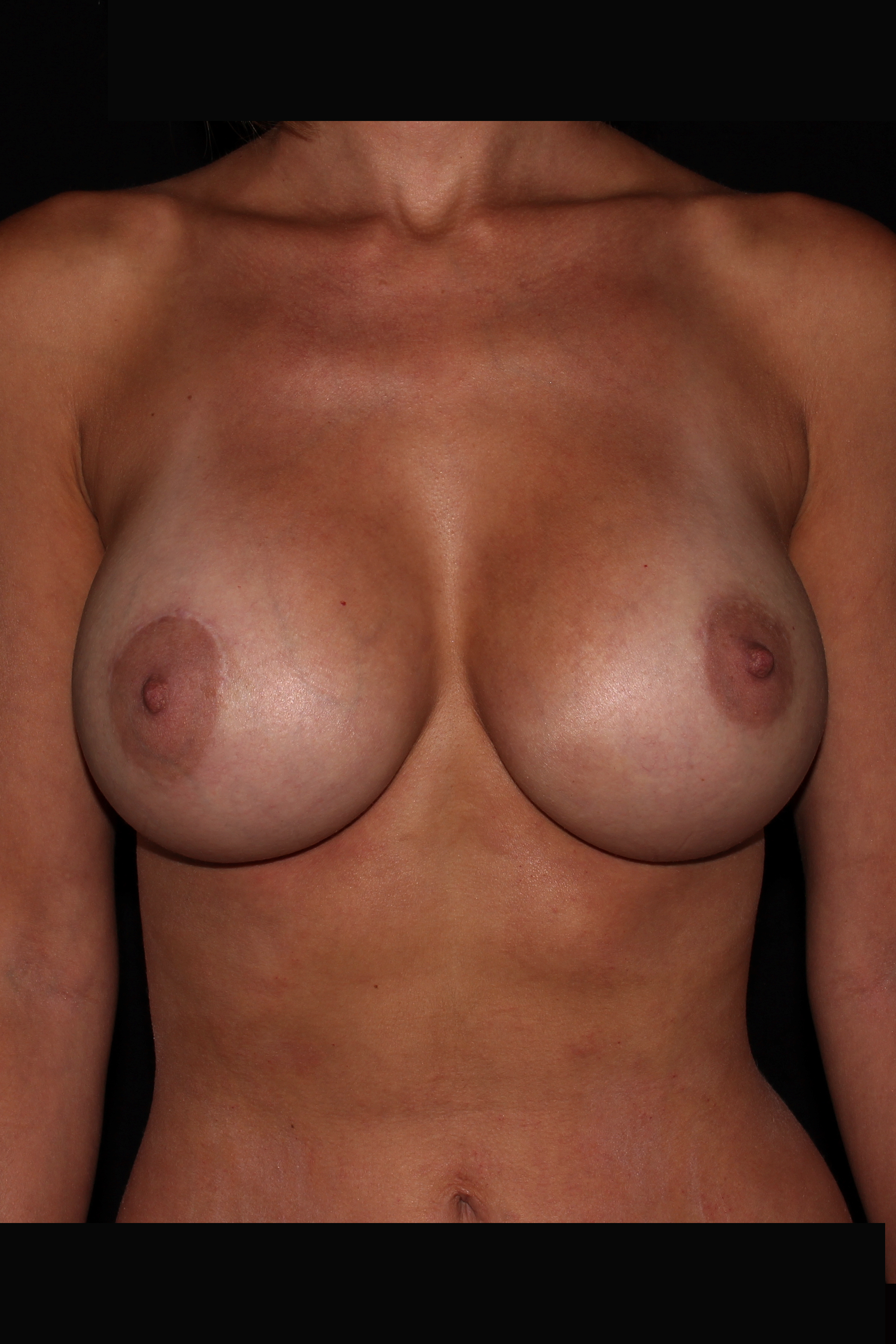 After Breast Augmentation - 455cc moderate profile silicone implants