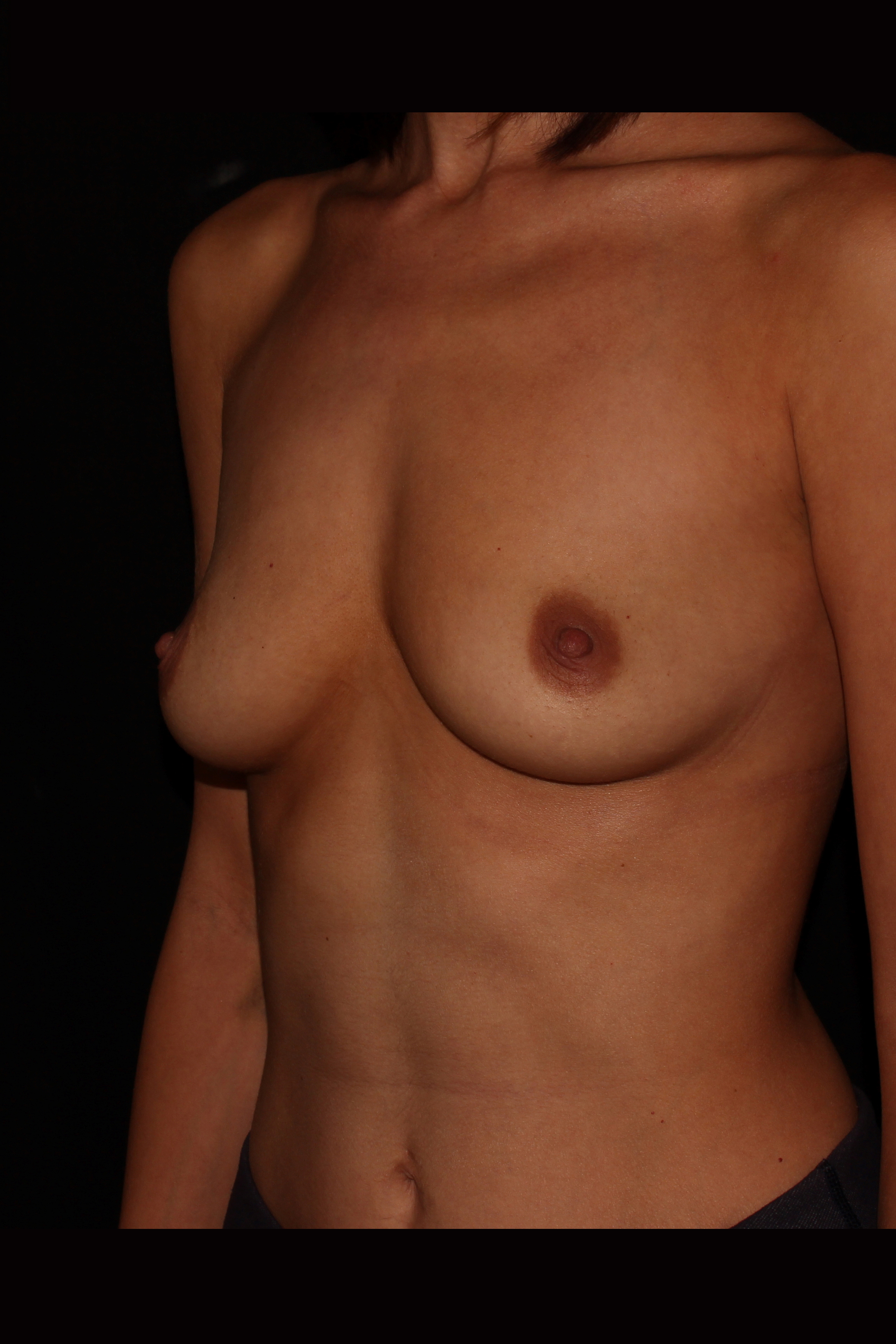 Before Breast Augmentation - Oblique 2