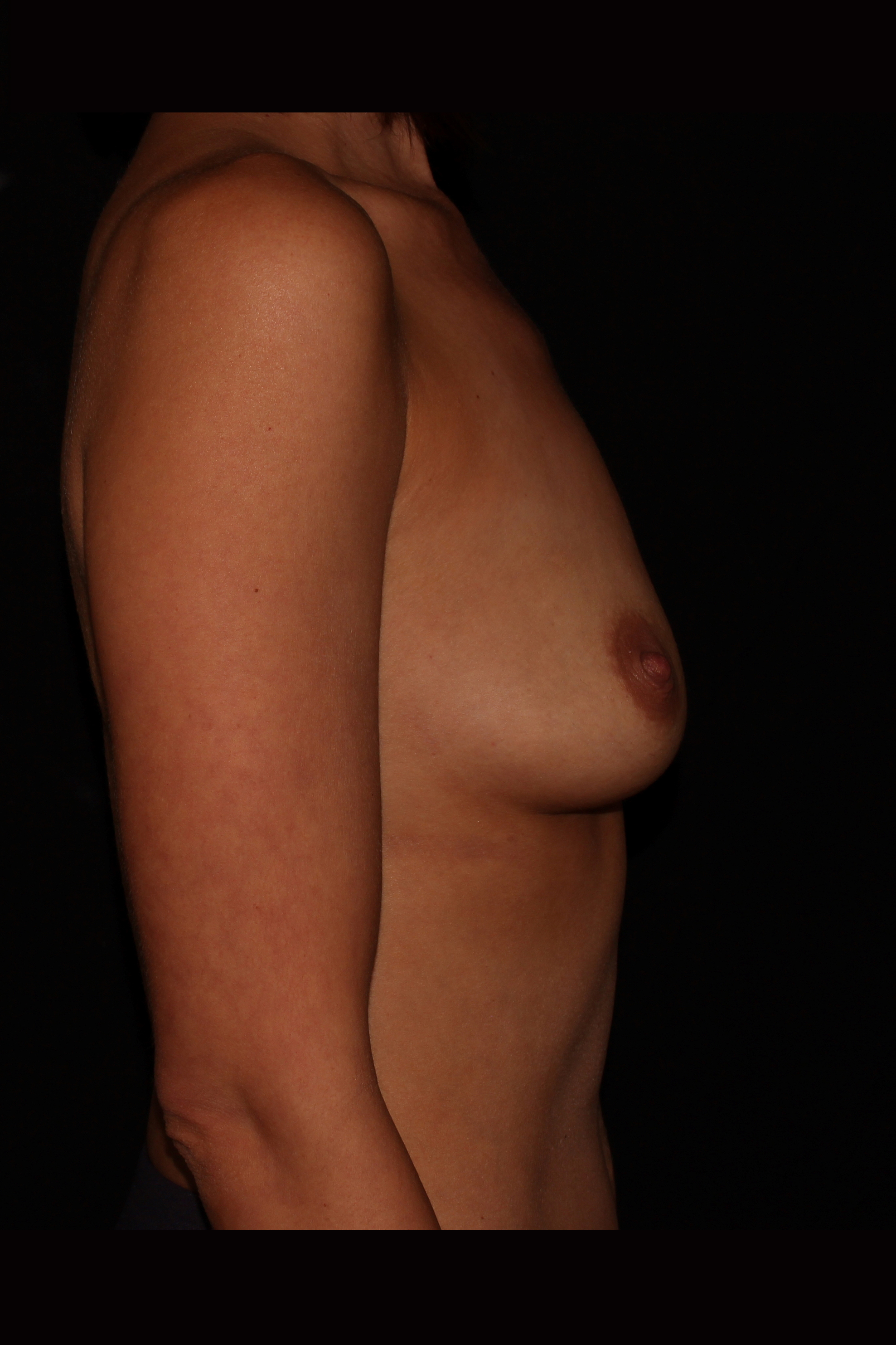 Before Breast Augmentation - Side