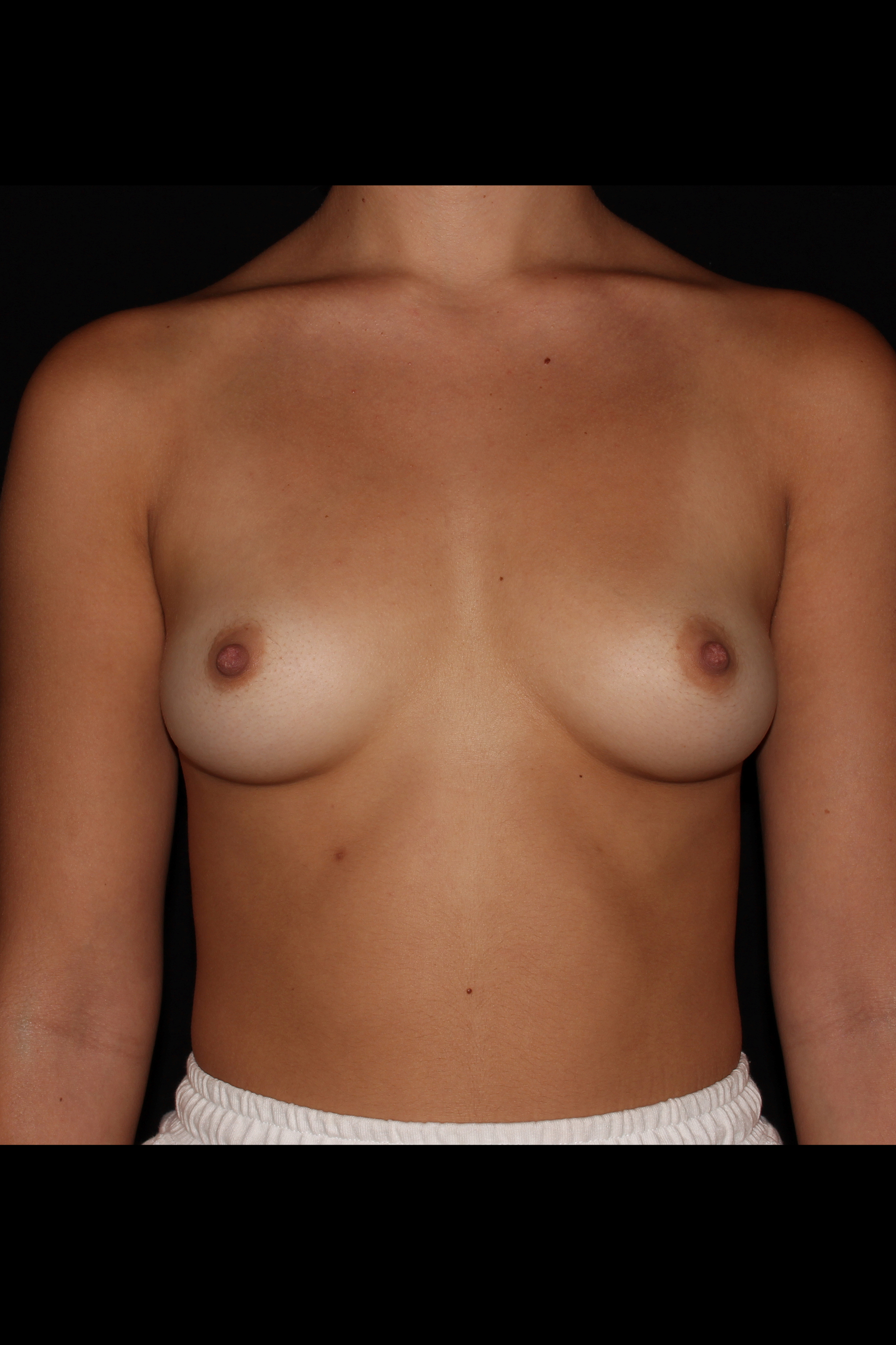 Before Breast Augmentation - 375cc moderate profile silicone implants