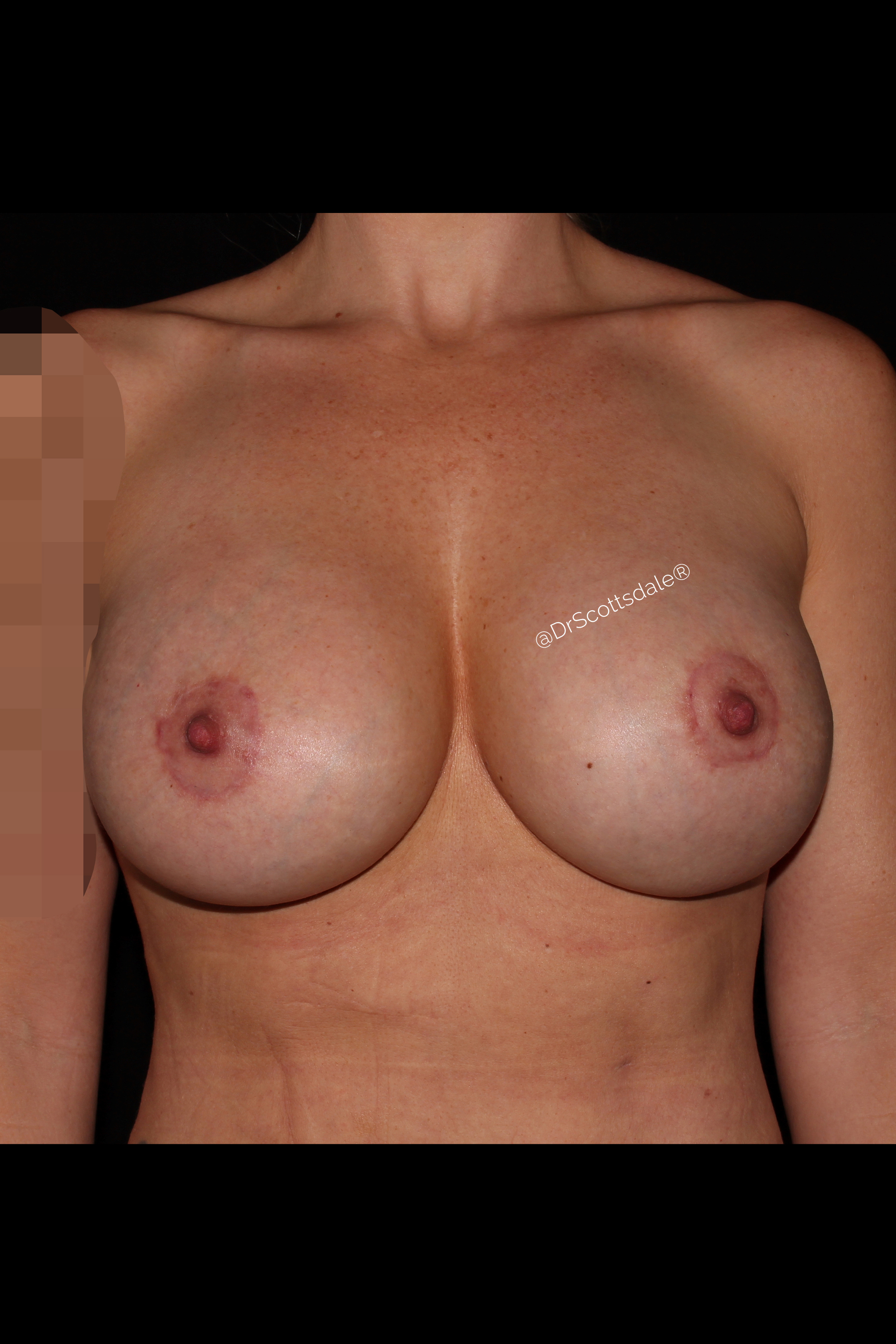 After Breast Revision - Implant exchange & fat transfer
