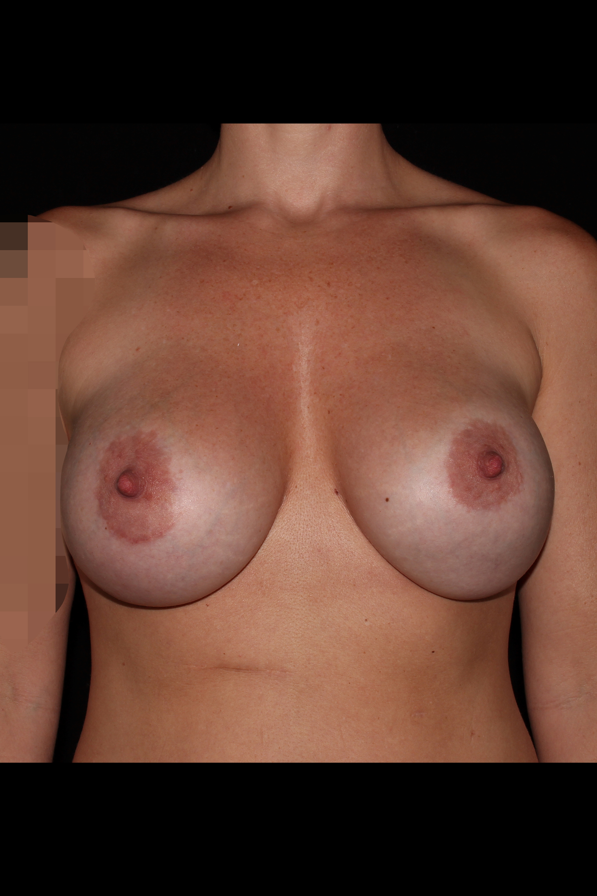Before Breast Revision - Implant exchange & fat transfer