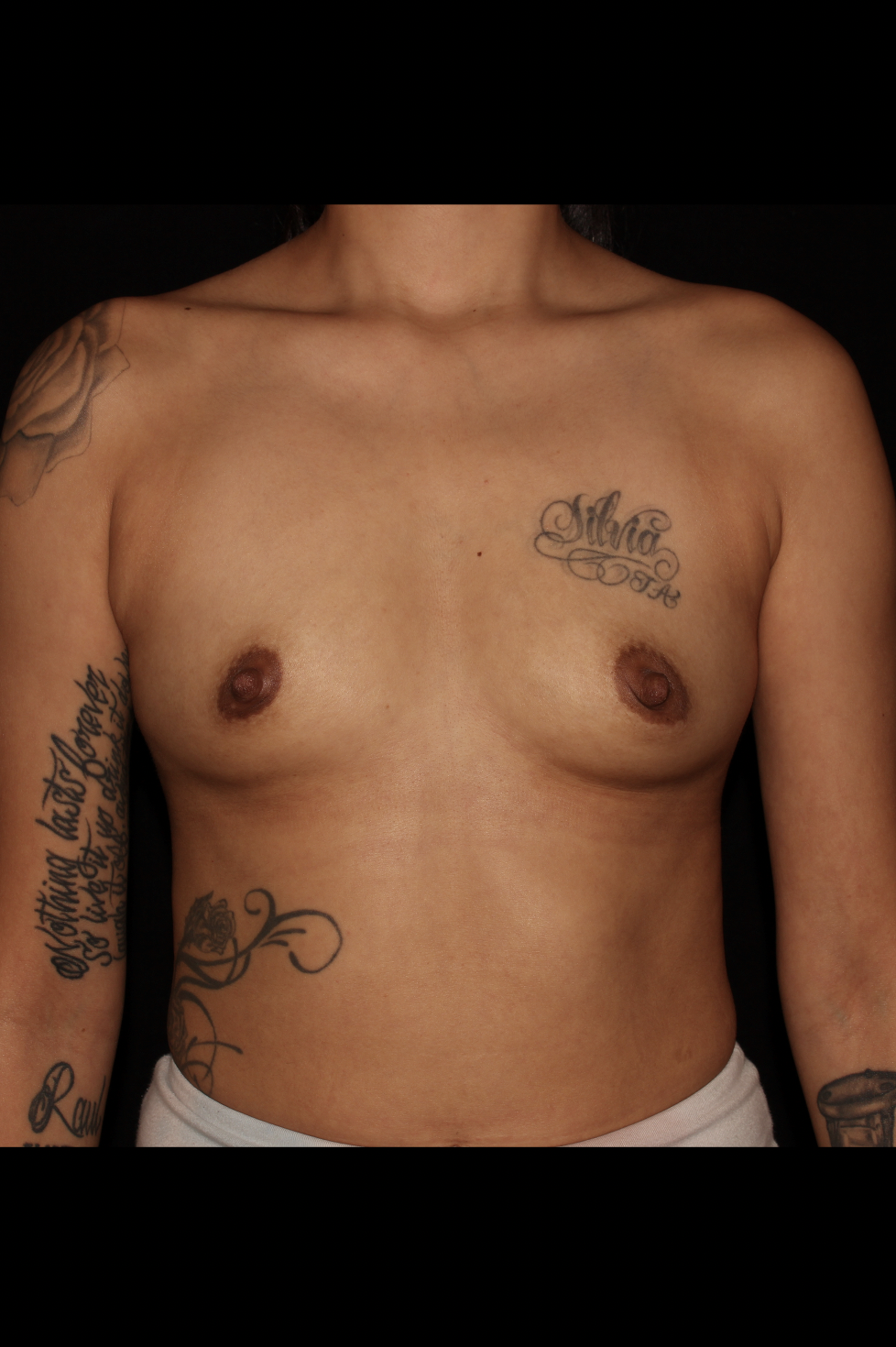 Before Breast Augmentation - Rapid Recovery Breast Augmentation