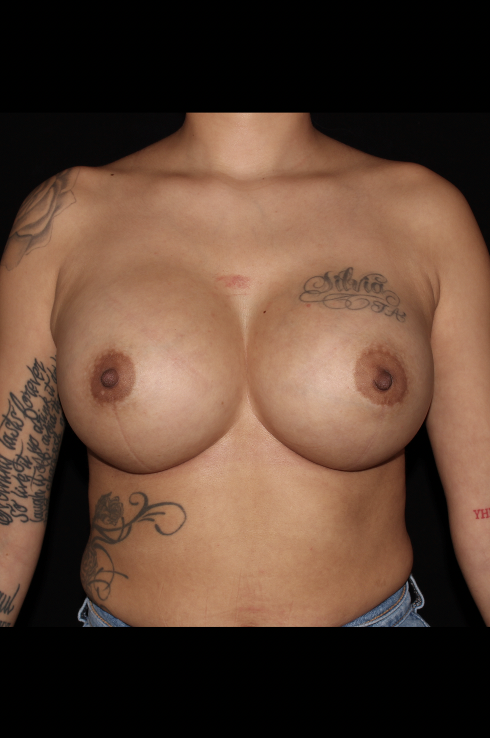After Breast Augmentation - Rapid Recovery Breast Augmentation