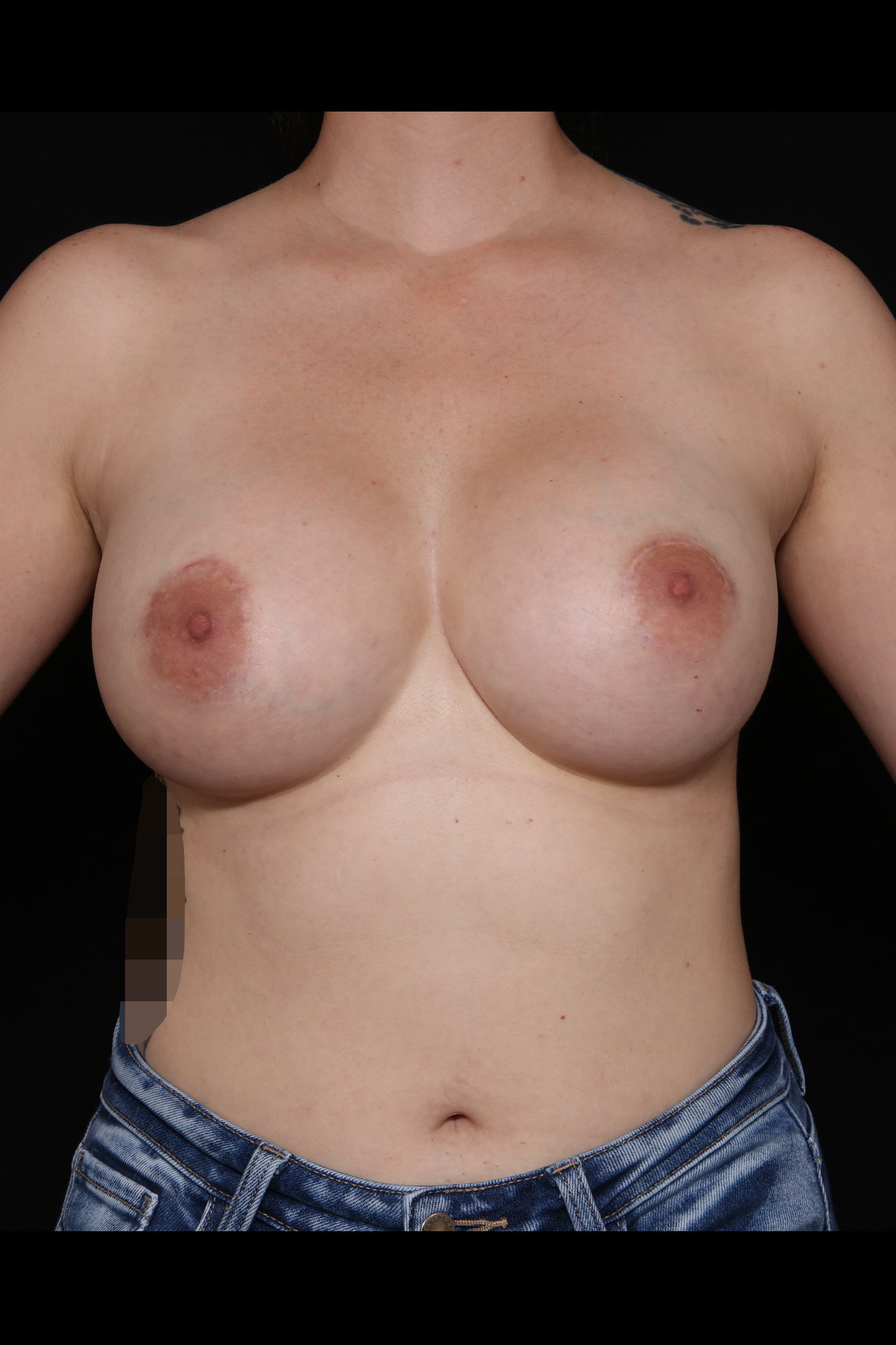 After Breast Augmentation - 485cc moderate silicone implants with a crescent lift