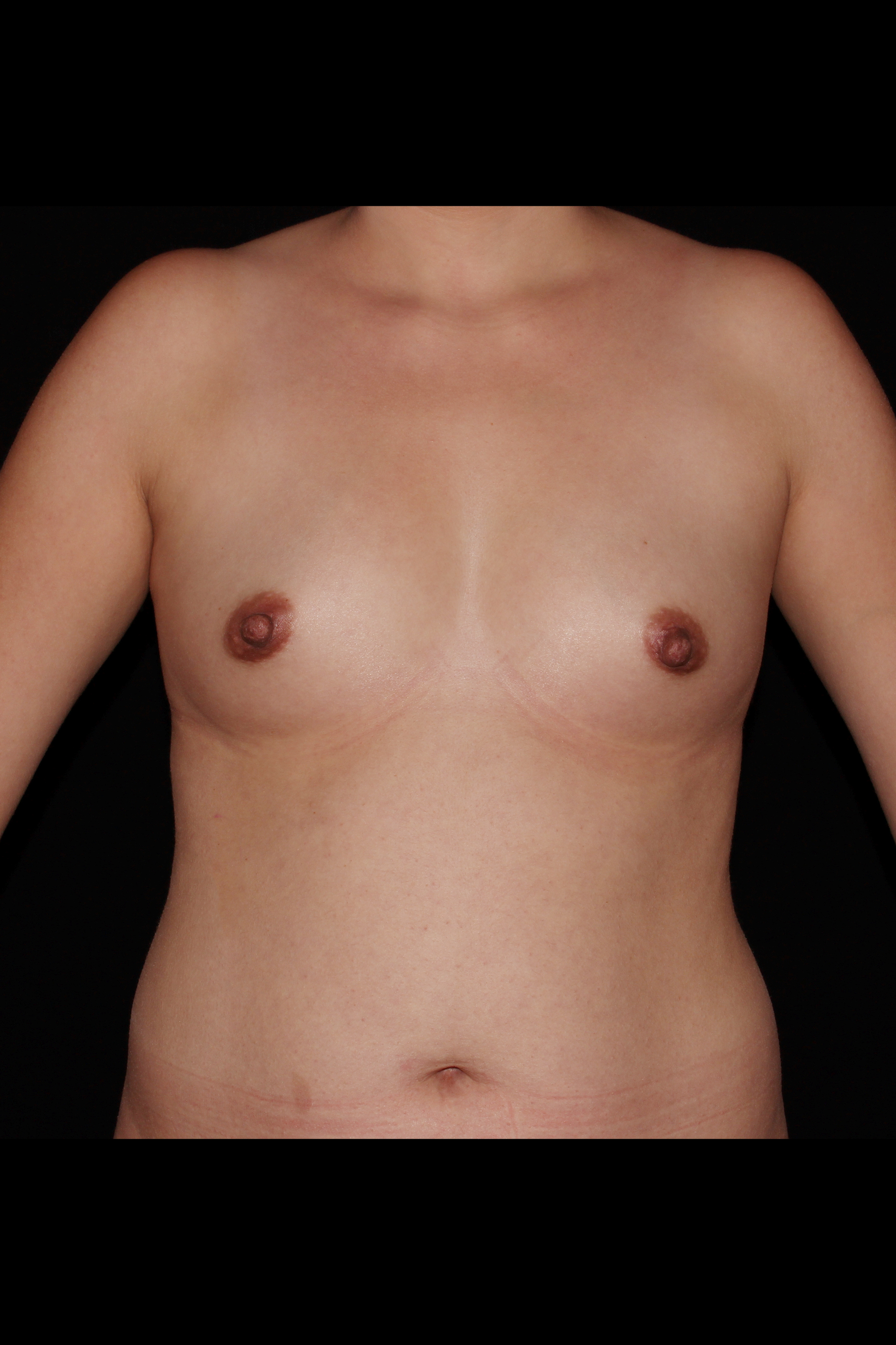 Before Breast Augmentation - 6 months post-op