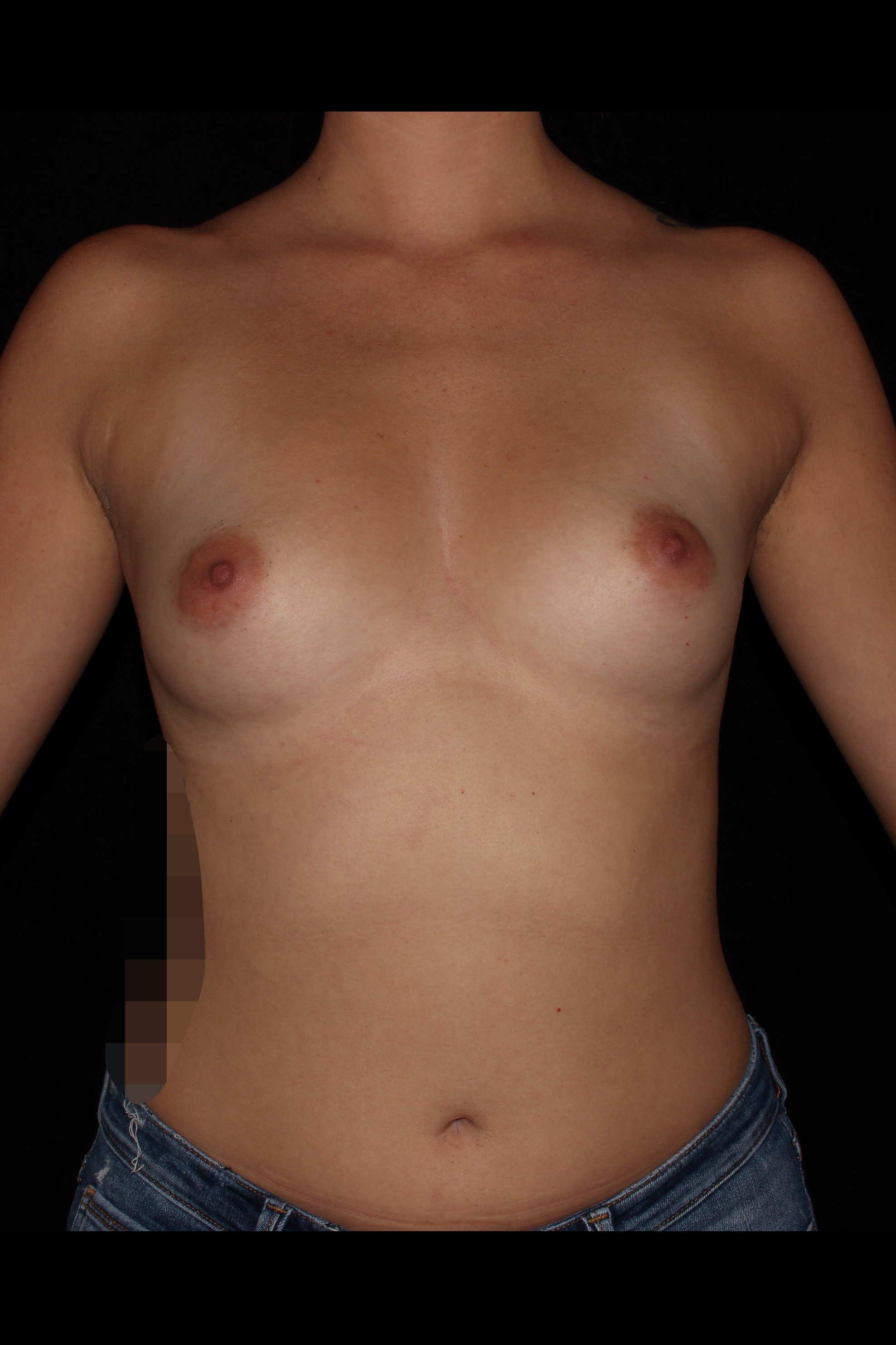 Before Breast Augmentation - 485cc moderate silicone implants with a crescent lift