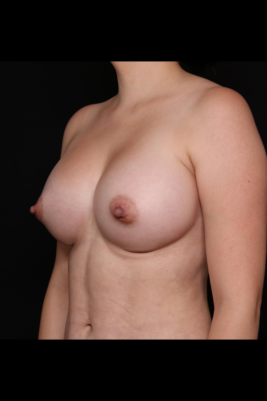 After Breast Augmentation - Oblique