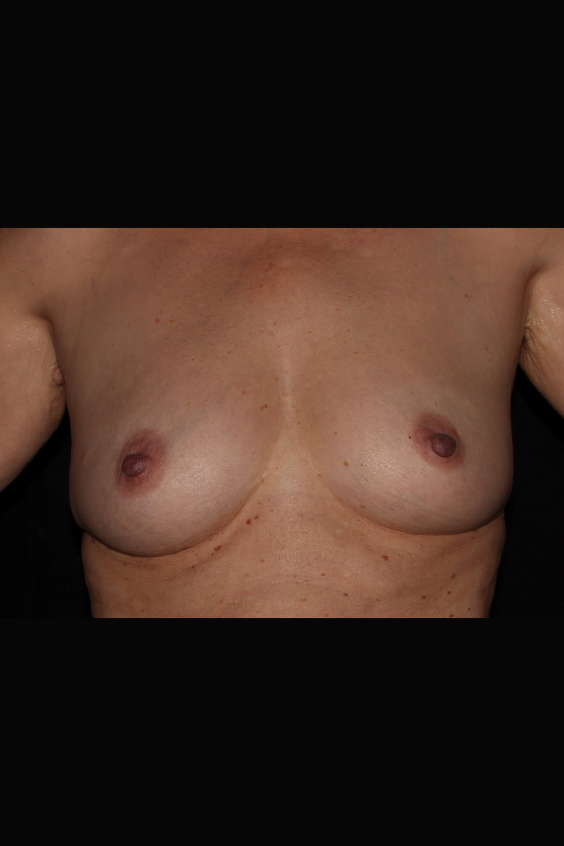 Before Fat Transfer to Breast - Fat transfer to the breast