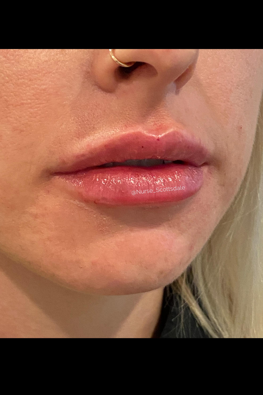 After Filler - Lip filler