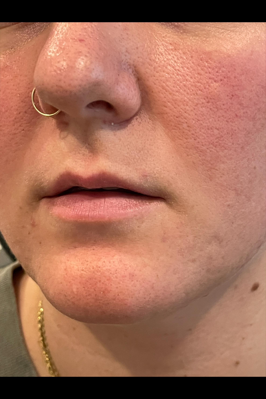 Before Filler - Lip Augmentation with filler