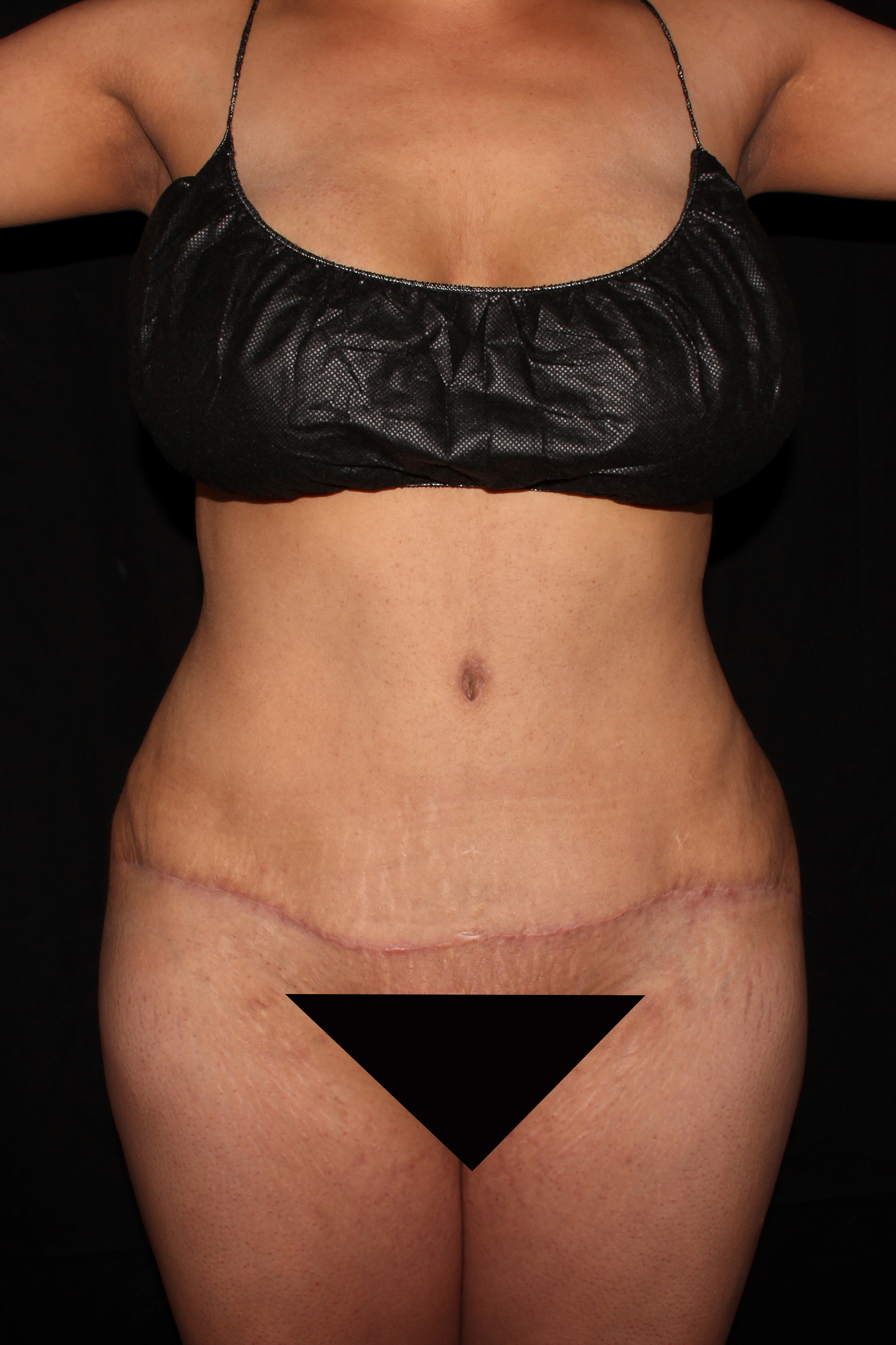 After Tummy Tuck - Front
