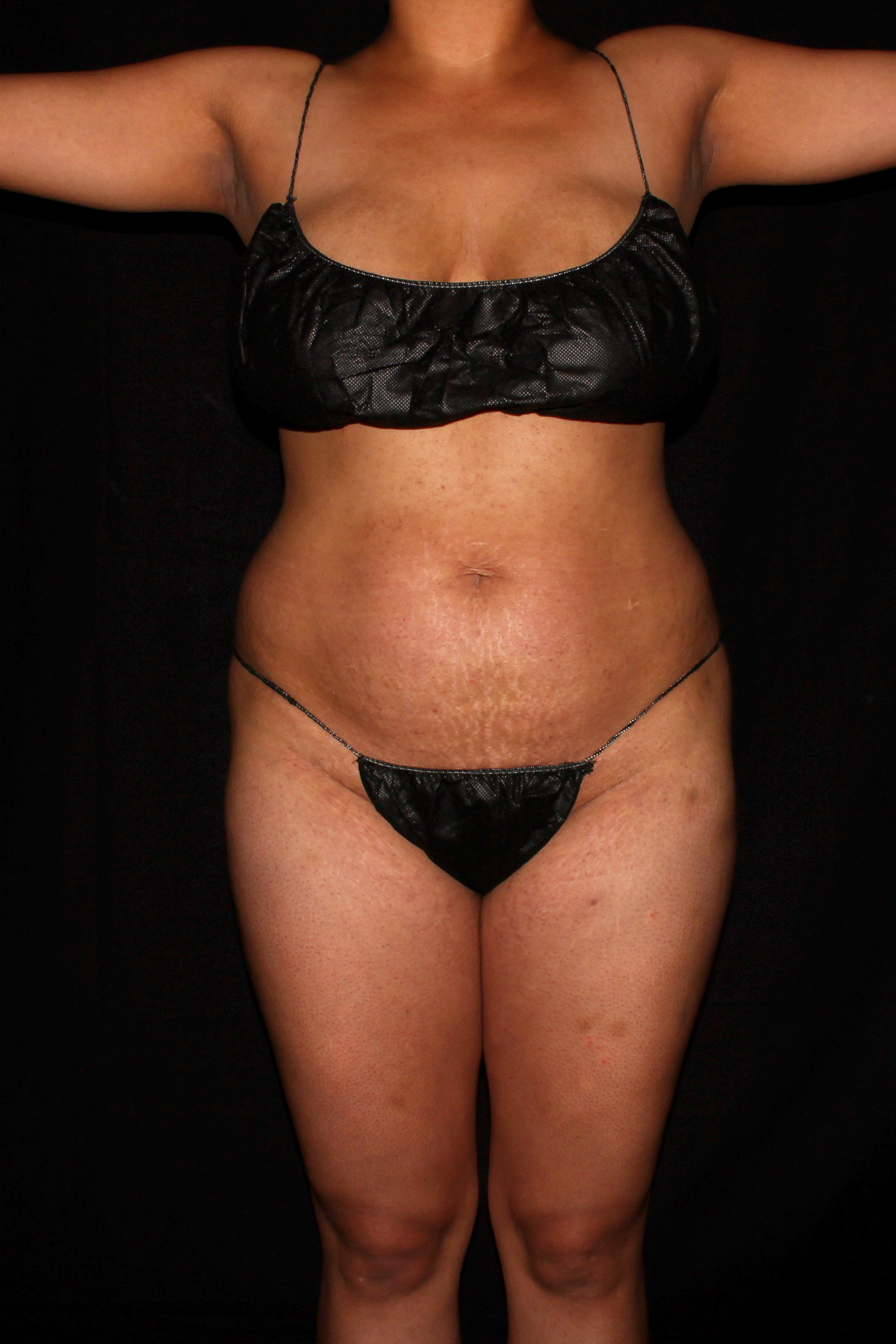 Before Tummy Tuck - Front