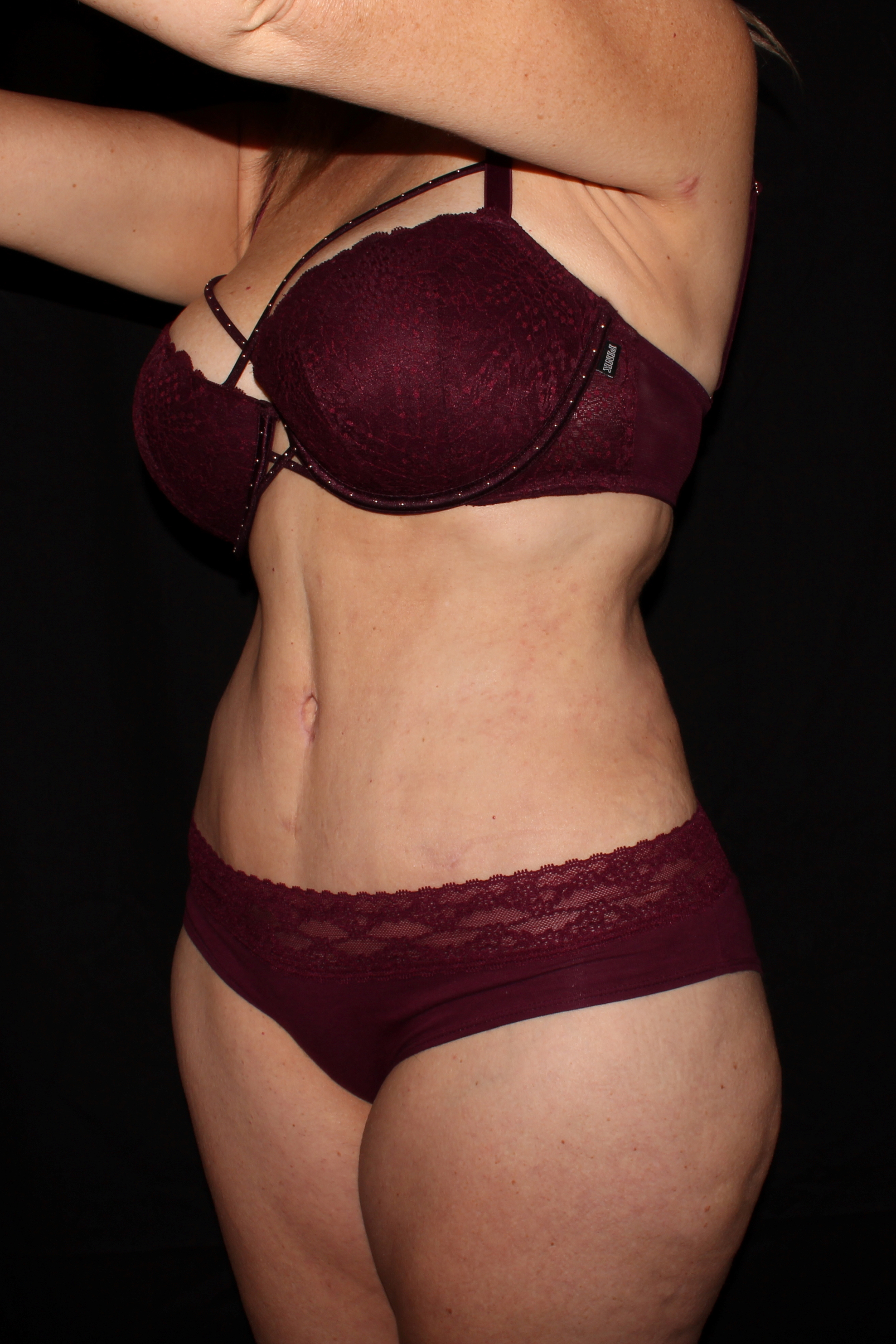 After Tummy Tuck - Oblique 1