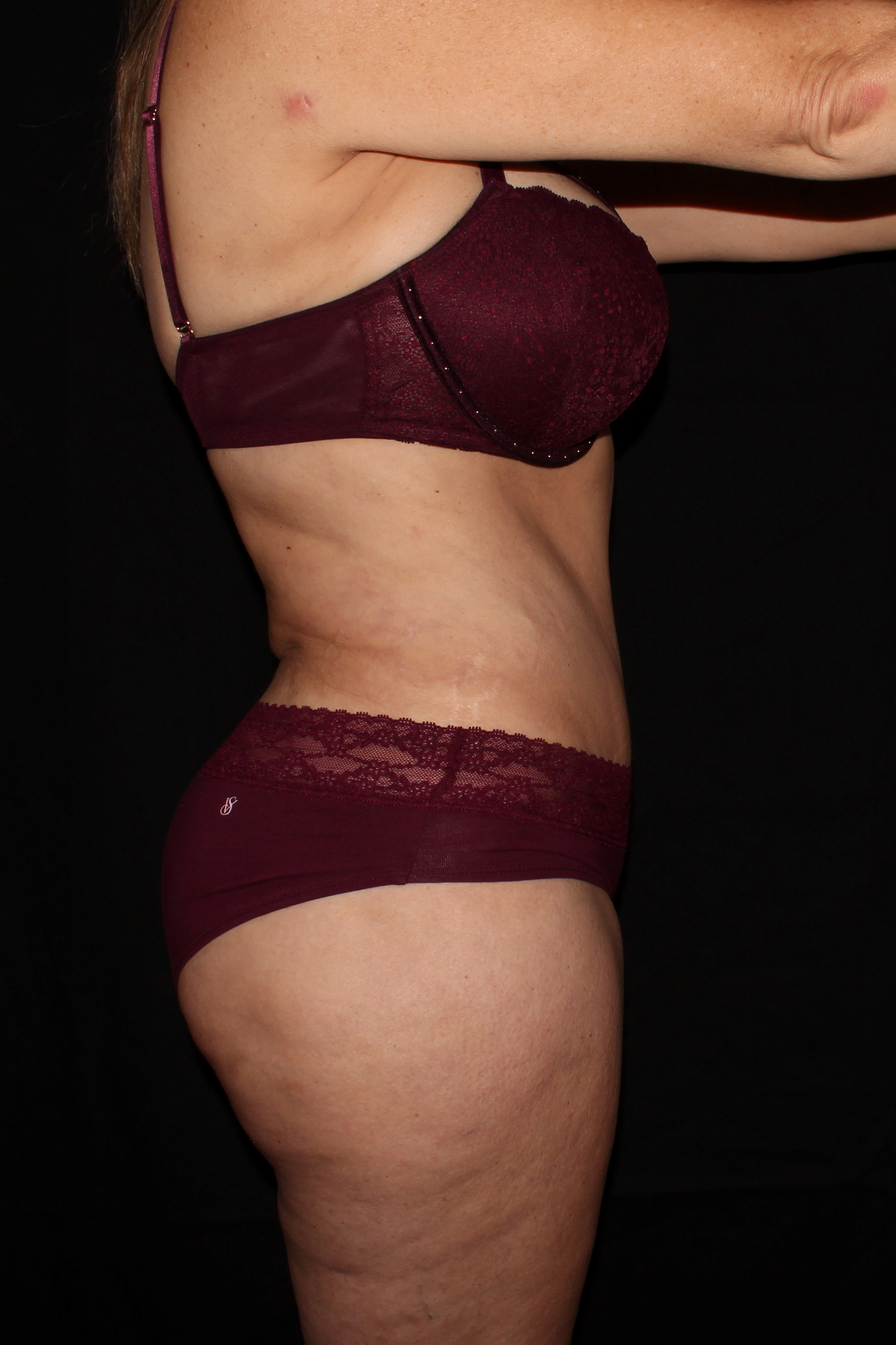 After Tummy Tuck - Side