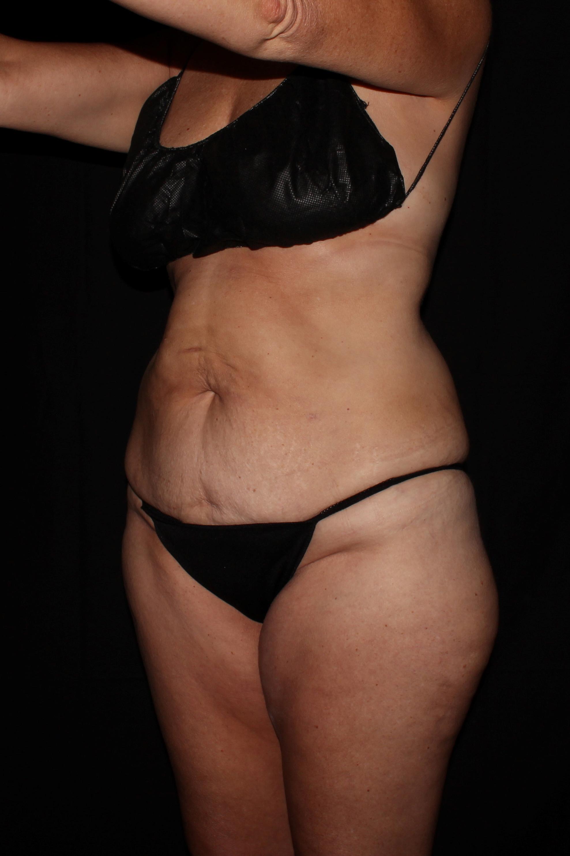 Before Tummy Tuck - Oblique 1