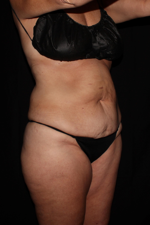 Before Tummy Tuck - Oblique 2