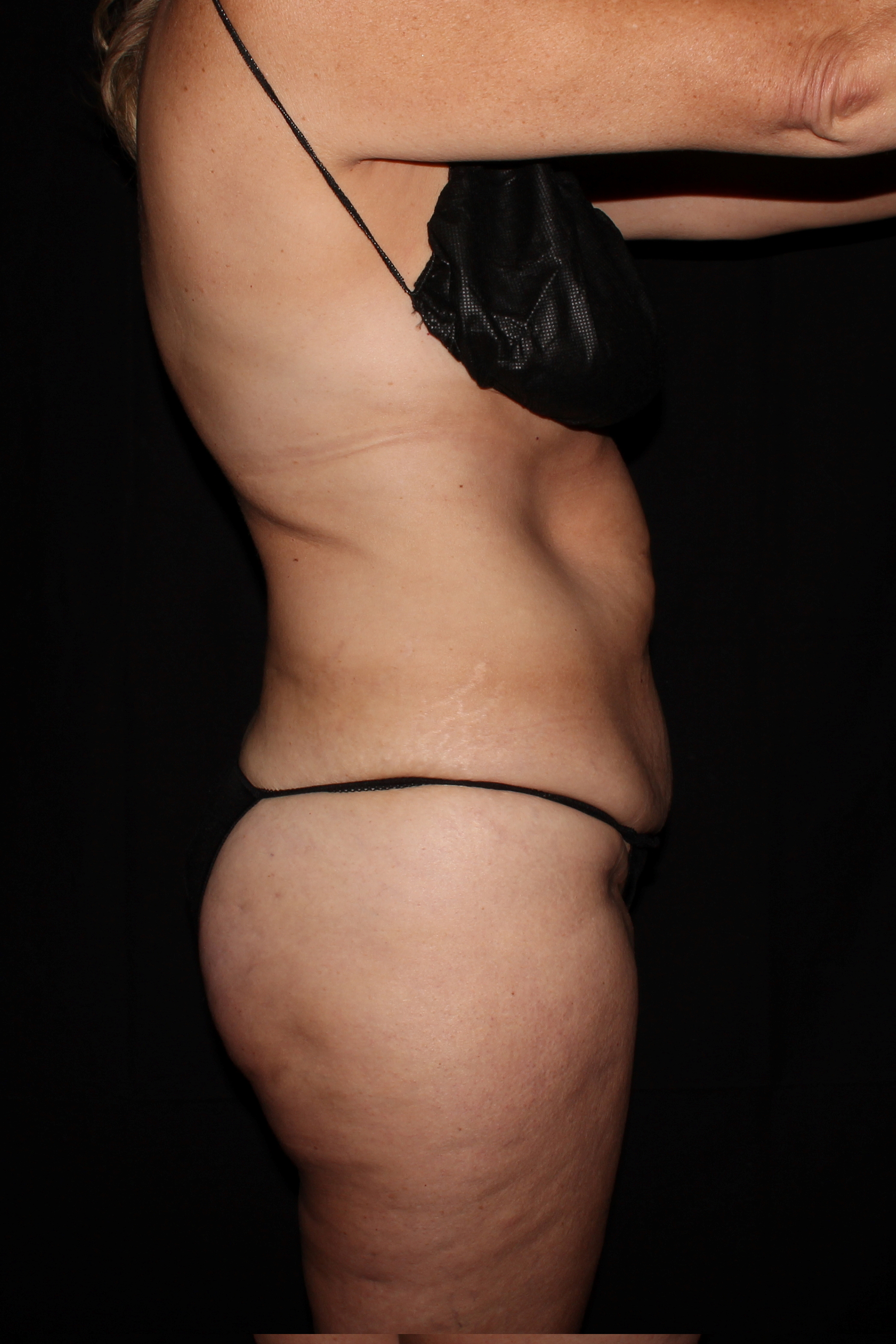 Before Tummy Tuck - Side