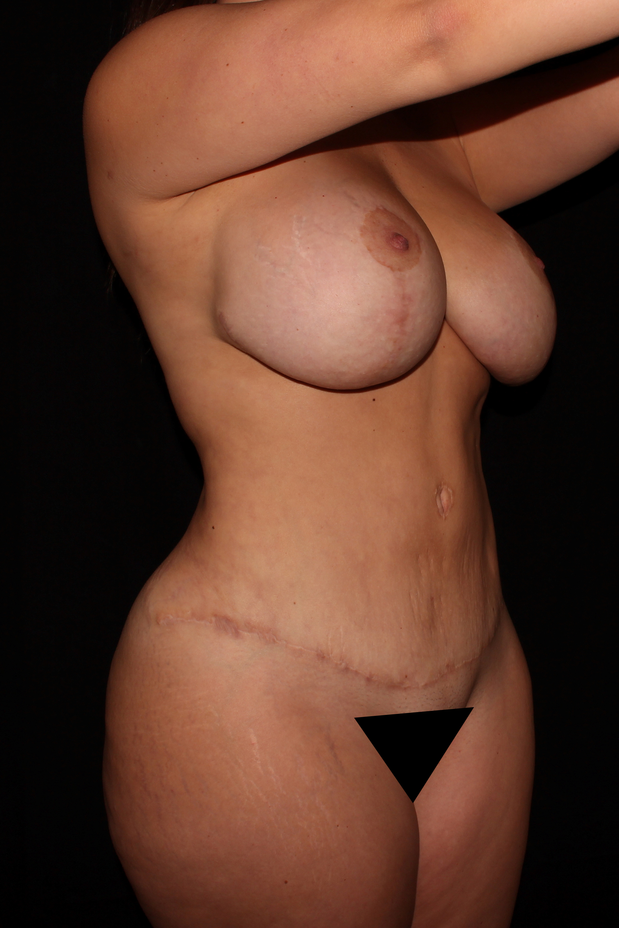 After Mommy Makeover - Oblique