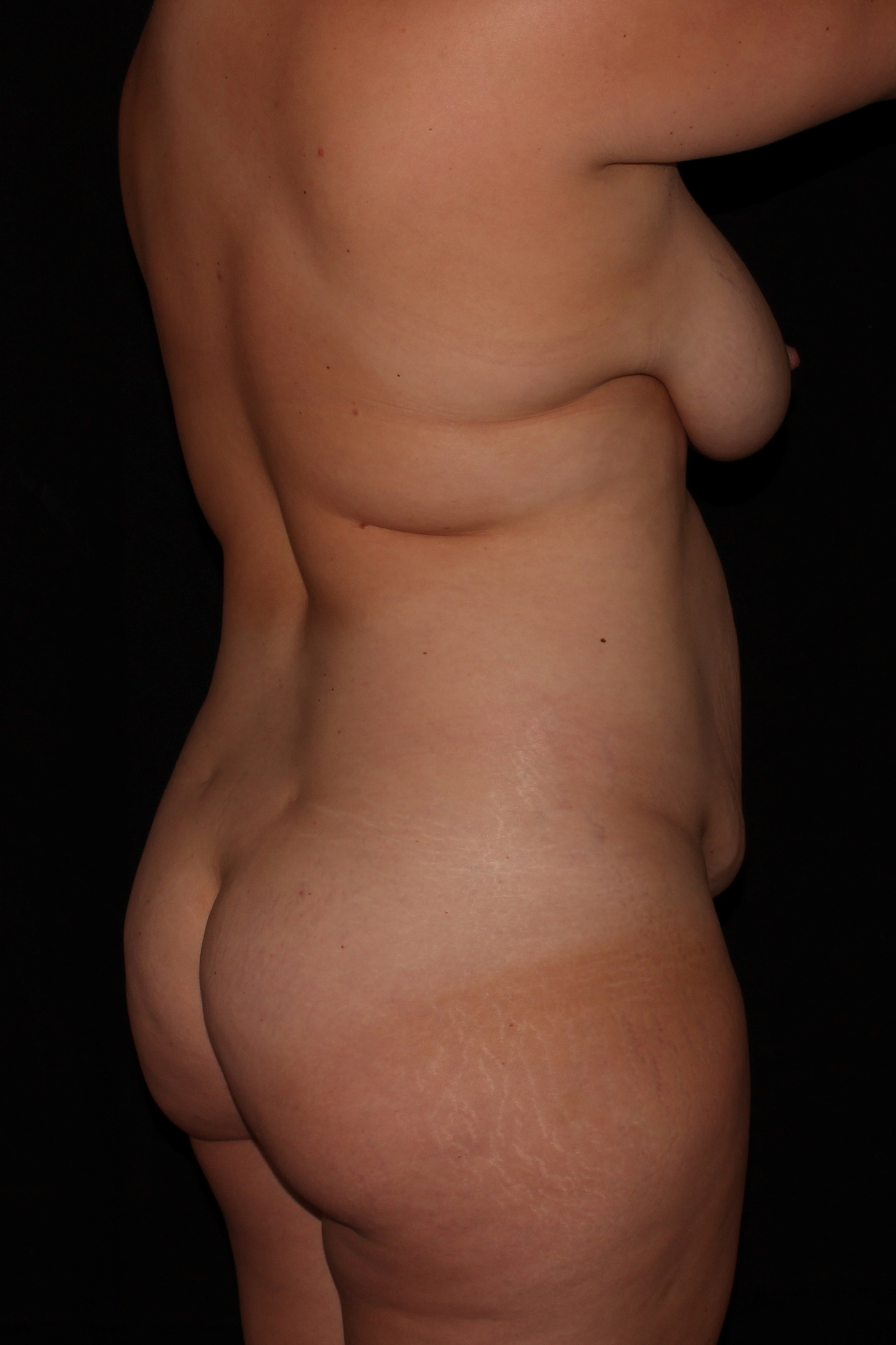 Before Mommy Makeover - Oblique Back
