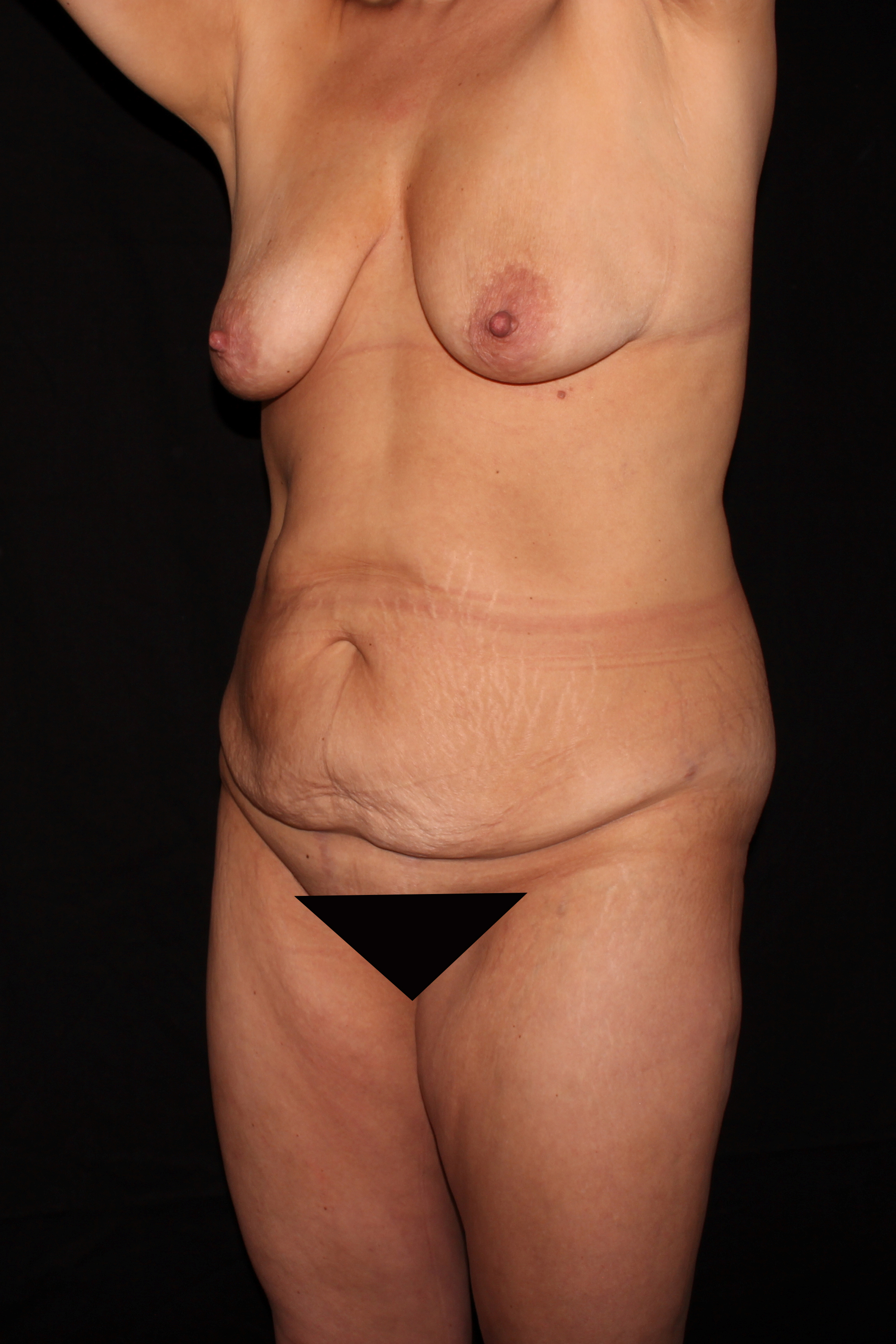 Before Mommy Makeover - Oblique 2