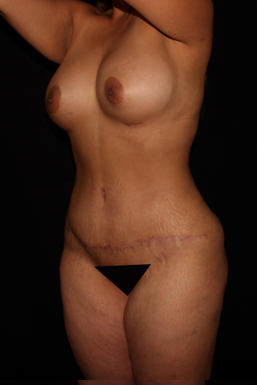 After Mommy Makeover - Oblique