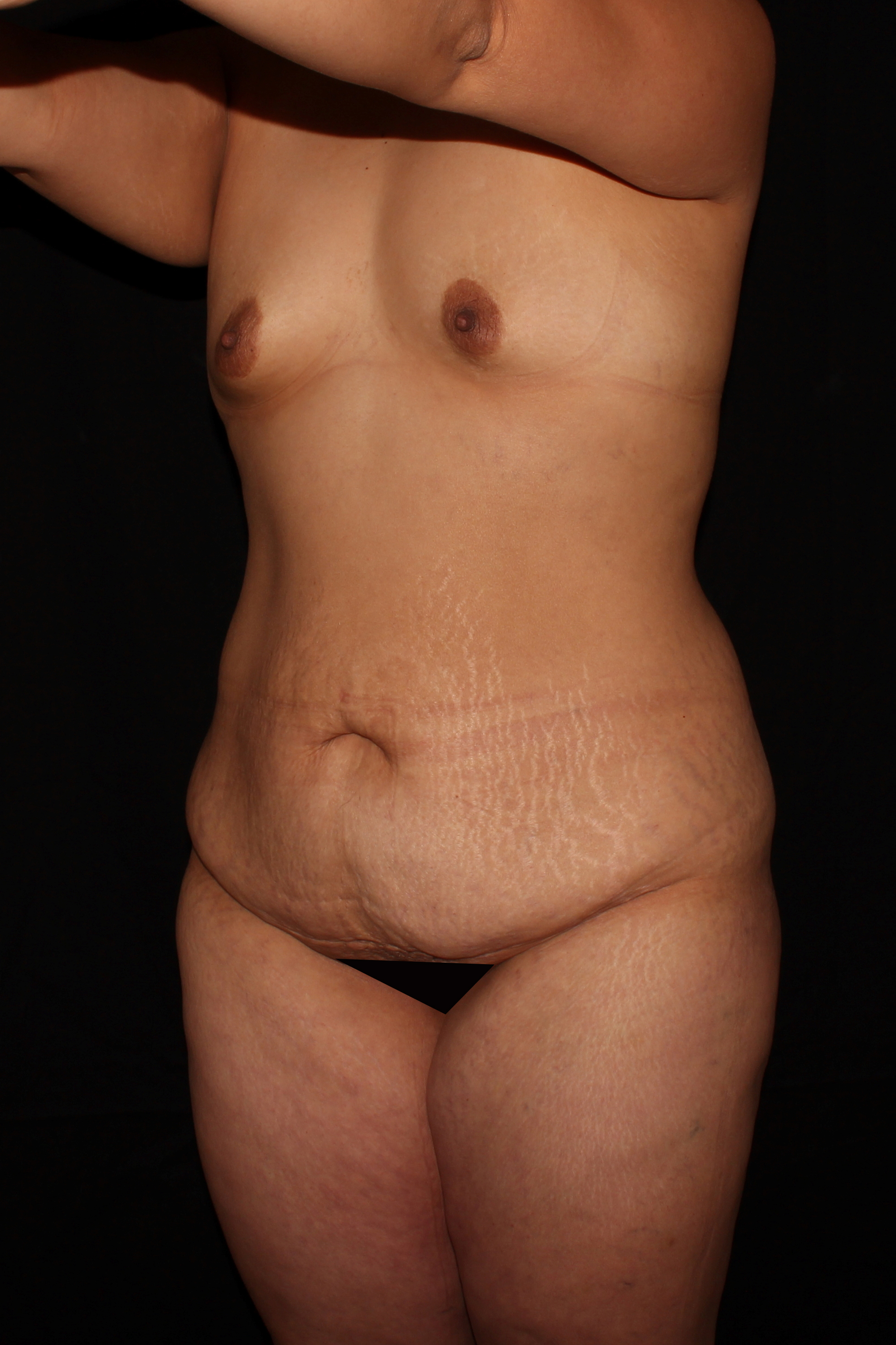 Before Mommy Makeover - Oblique