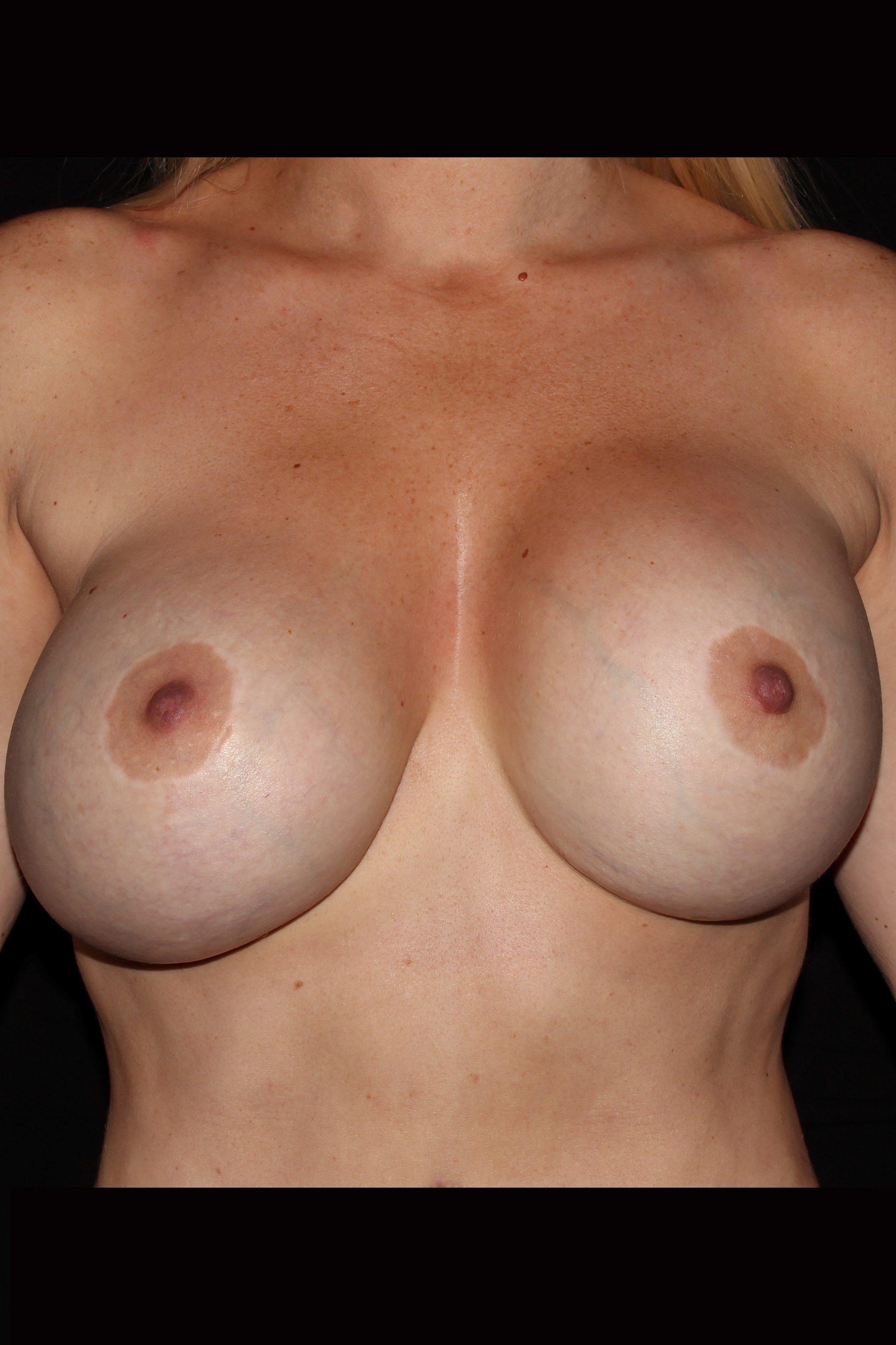 Before Mommy Makeover - Breast Revision