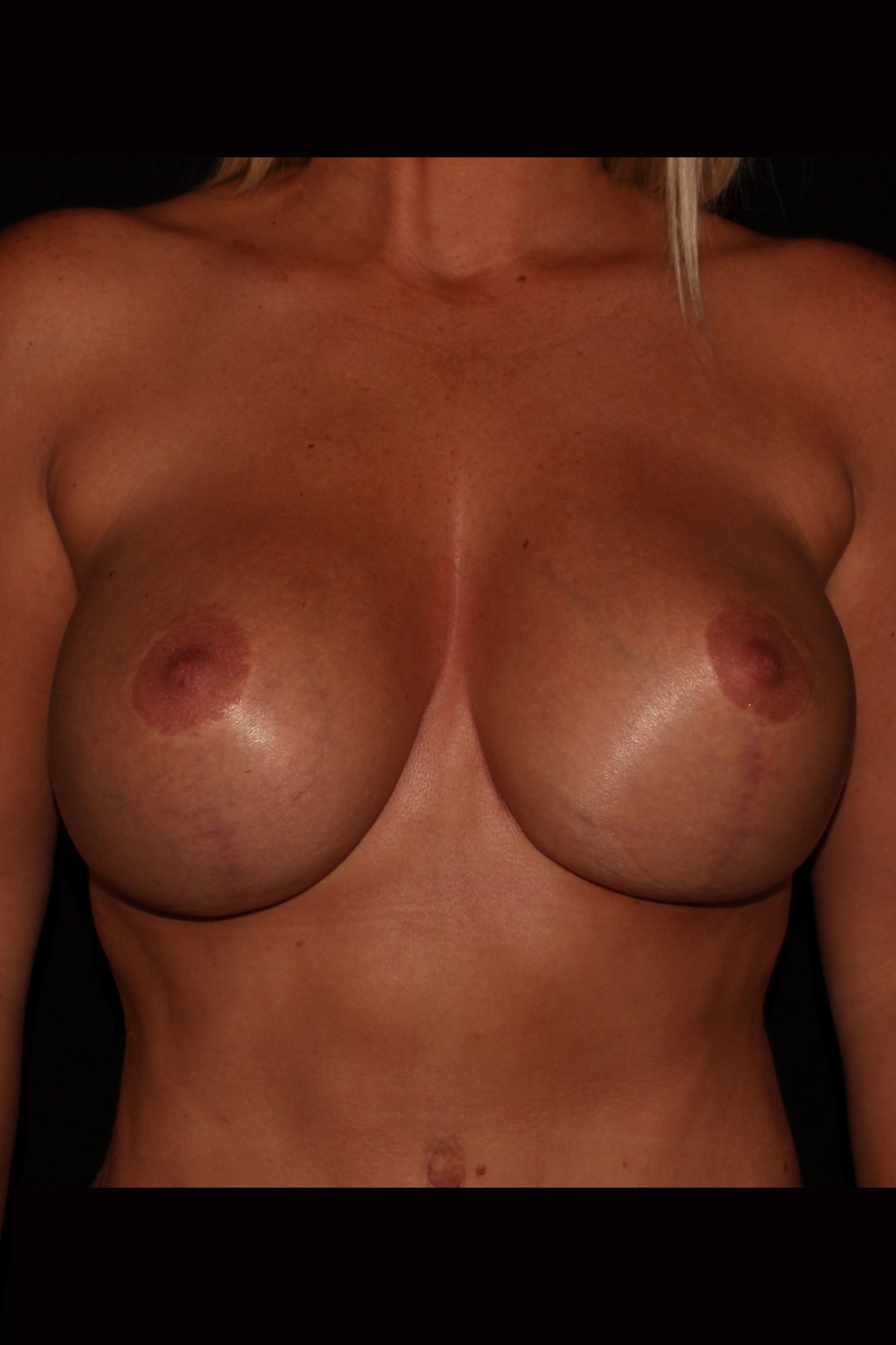 After Mommy Makeover - Breast Revision