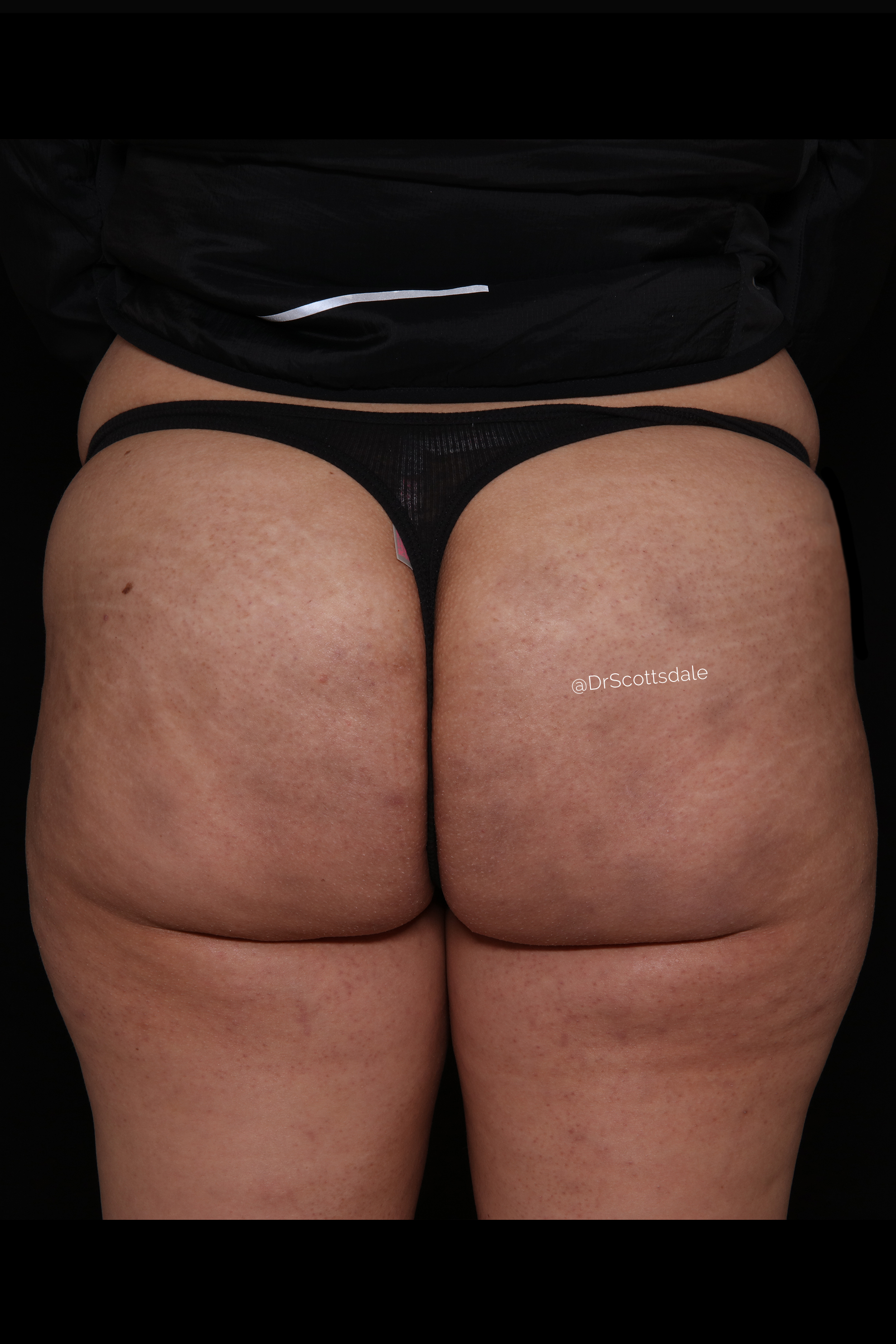 After Cellulite Reduction - Qwo - Cellulite Reduction by injections