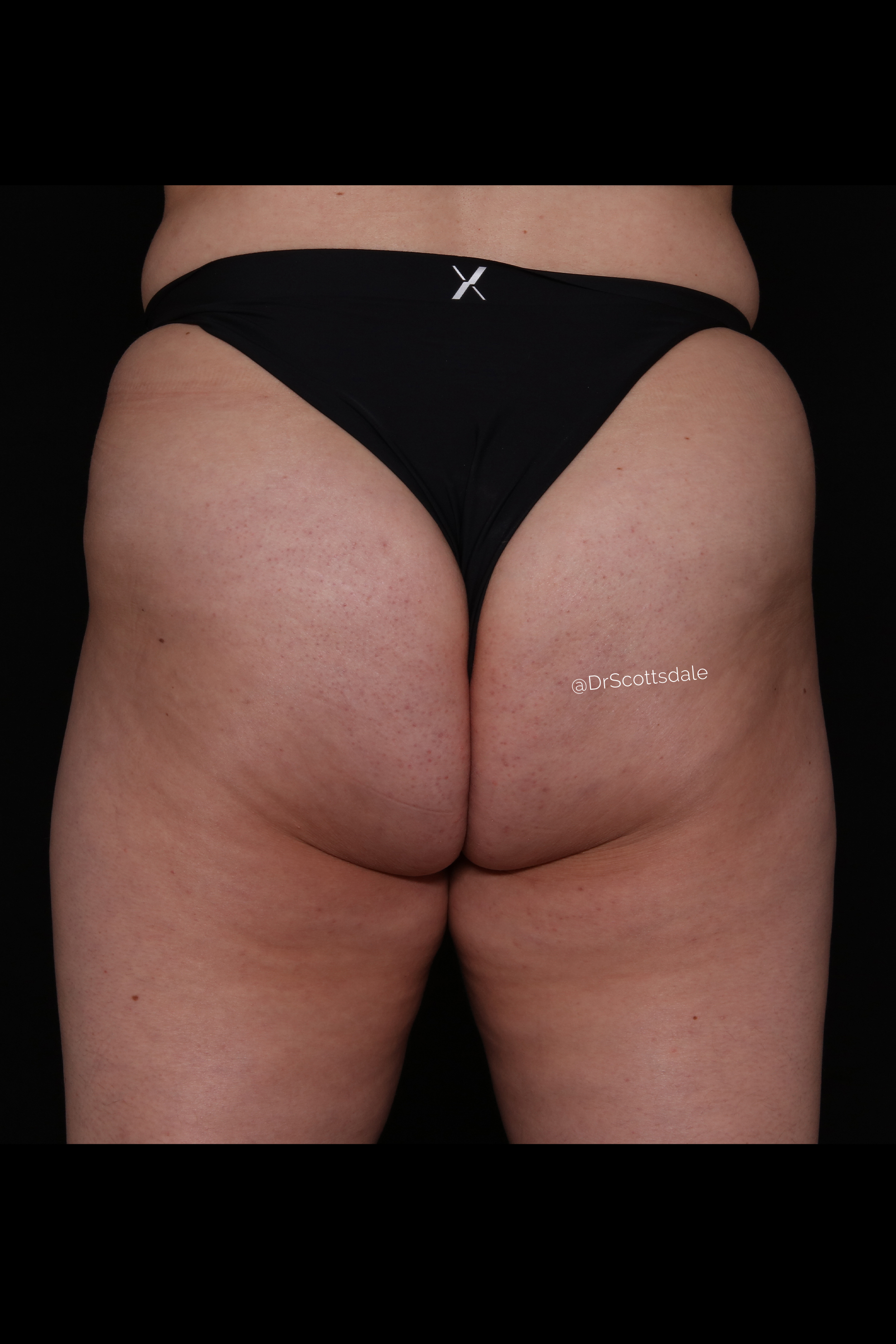 After Cellulite Reduction - Qwo
