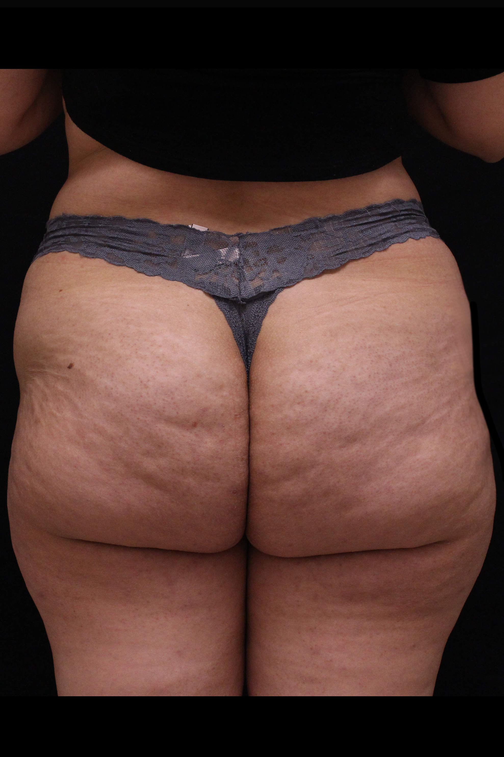 Before Cellulite Reduction - Qwo - Cellulite Reduction by injections