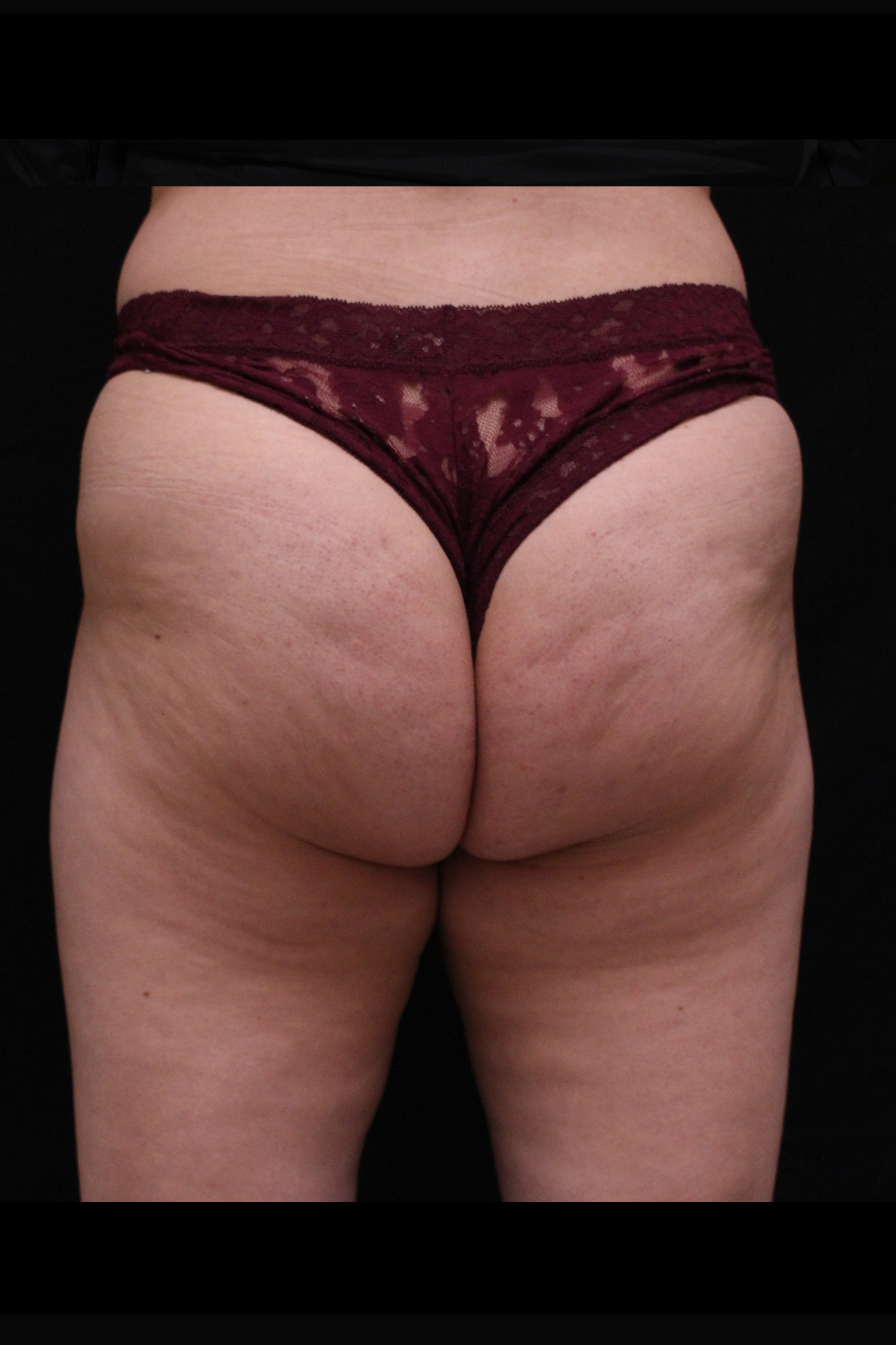 Before Cellulite Reduction - Qwo