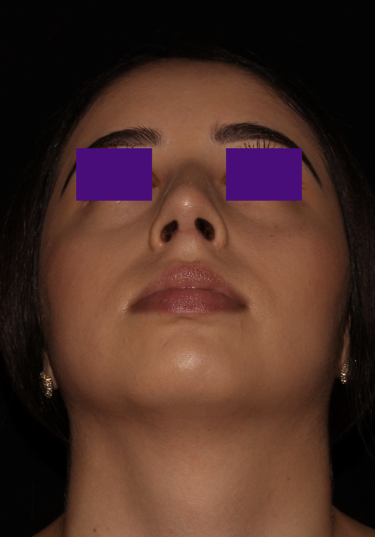 After Rhinoplasty - Septoplasty to correct a deviated septum