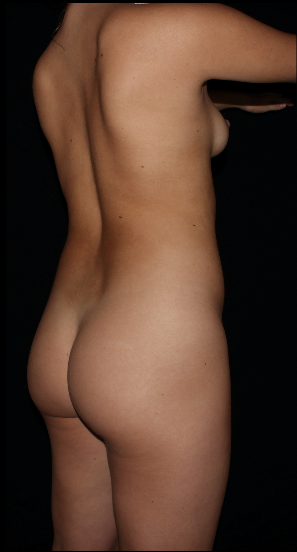 Before Brazilian Butt Lift - Scottsdale Skinny