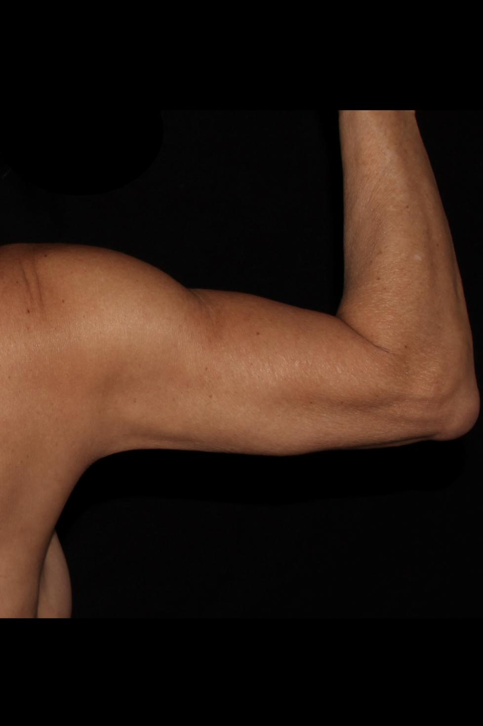 After Arm Procedure - Arm Liposuction & Skin Tightening