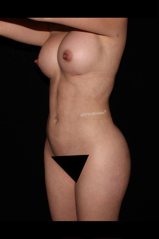 After Scottsdale Skinny - Scottsdale Skinny & Breast Augmentation
