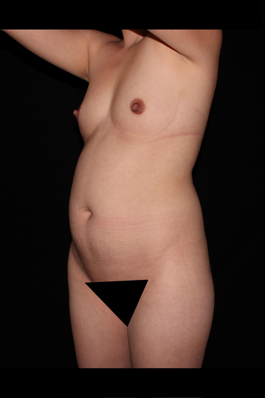 Before Scottsdale Skinny - Scottsdale Skinny & Breast Augmentation
