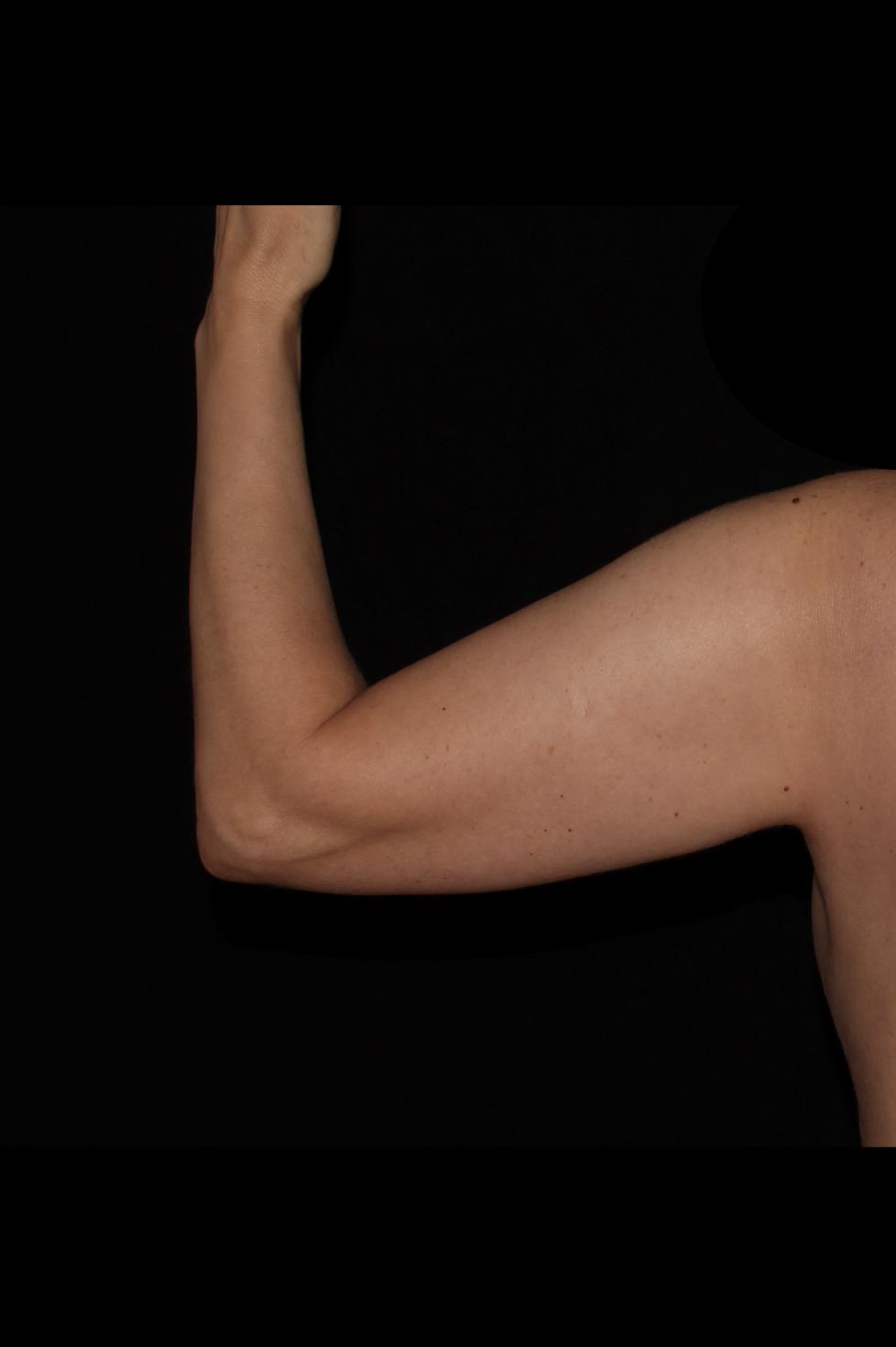 Before Arm Procedure - Arm Liposuction & Magic Tight®