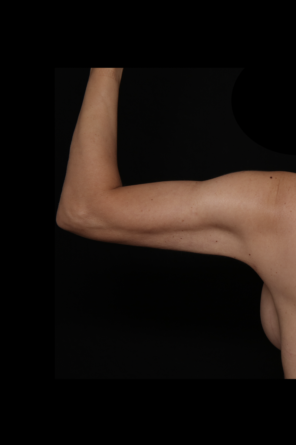 After Arm Procedure - Arm Liposuction & Magic Tight®