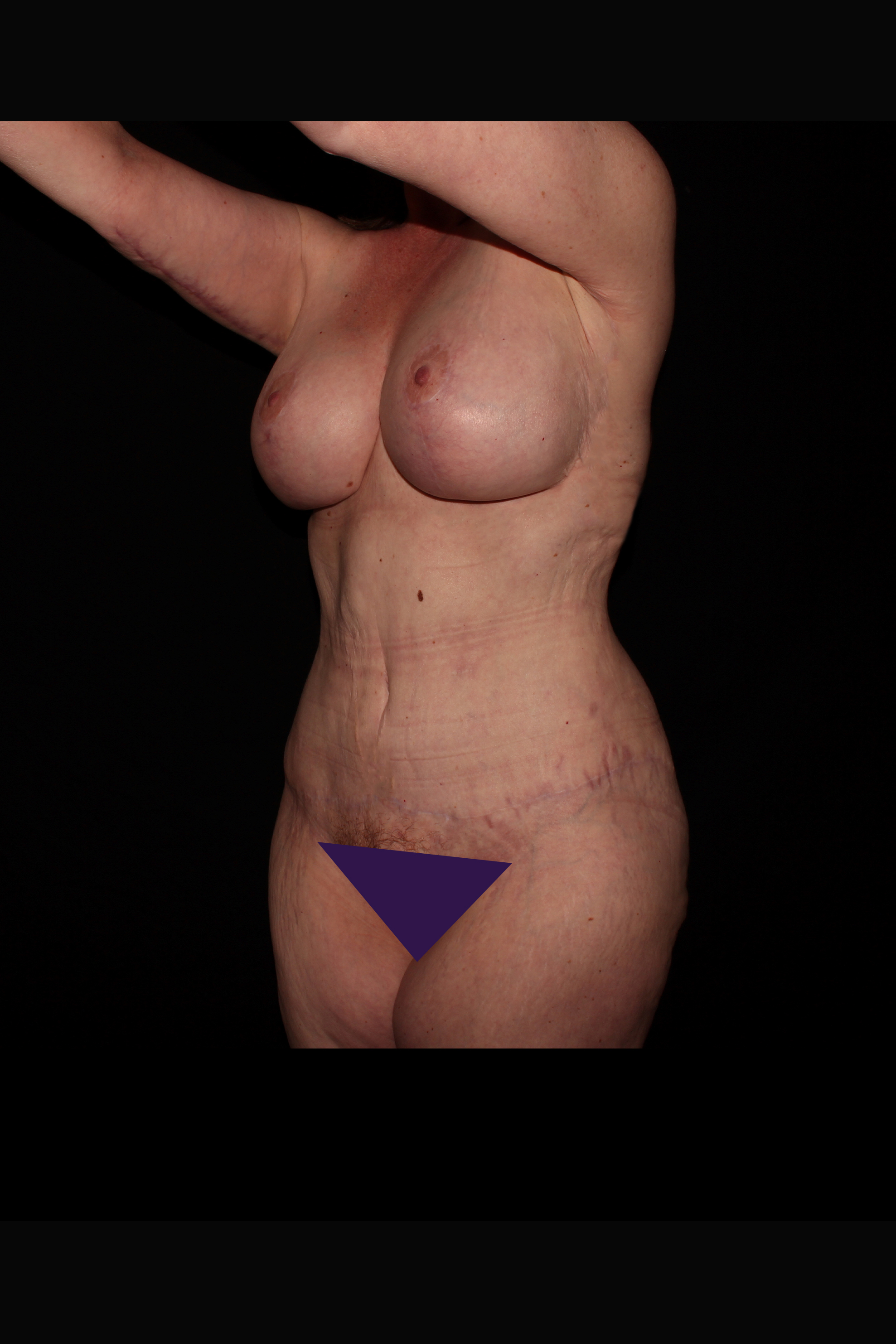 After After Weight Loss Surgery - Oblique