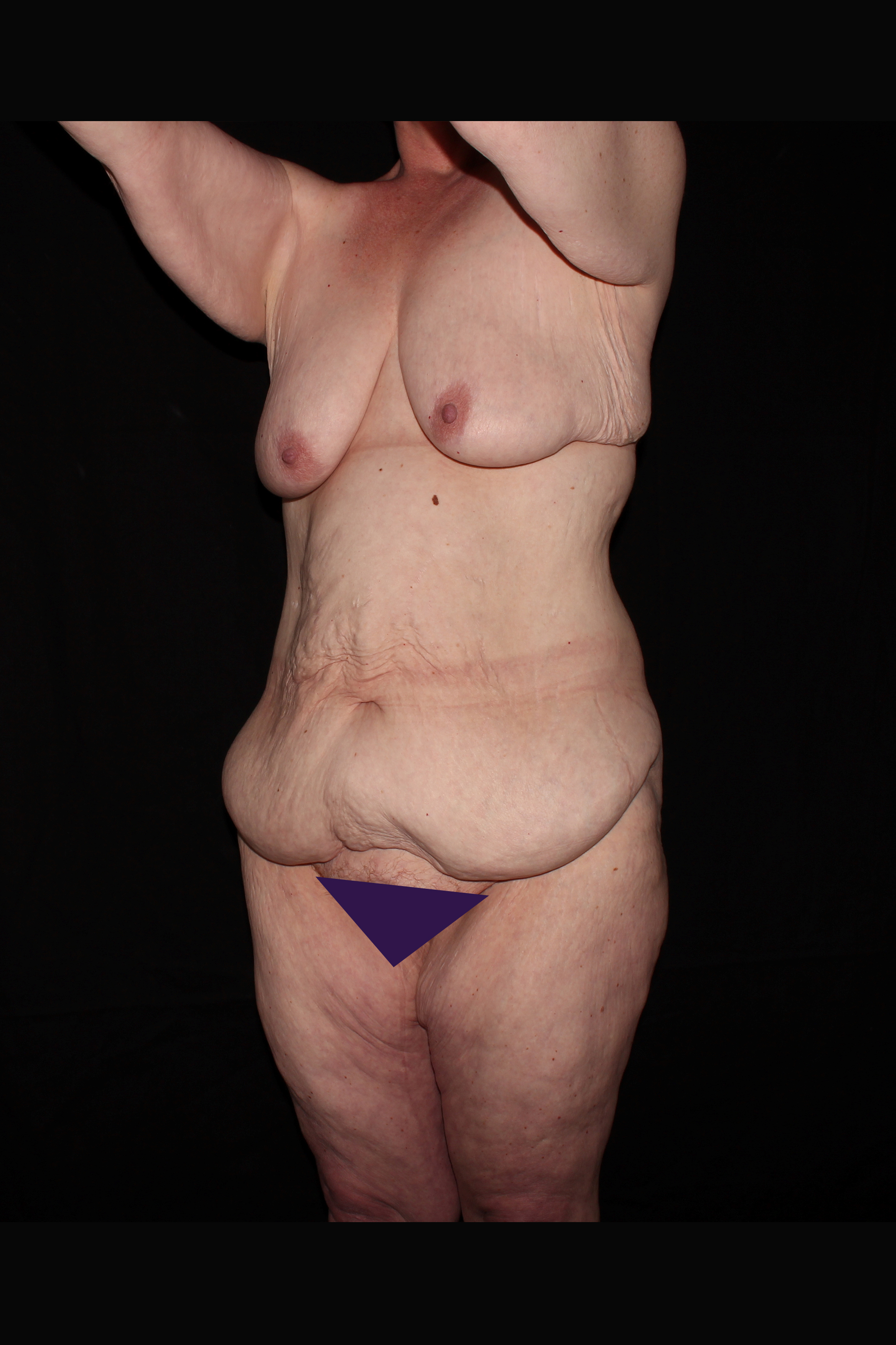 Before After Weight Loss Surgery - Oblique