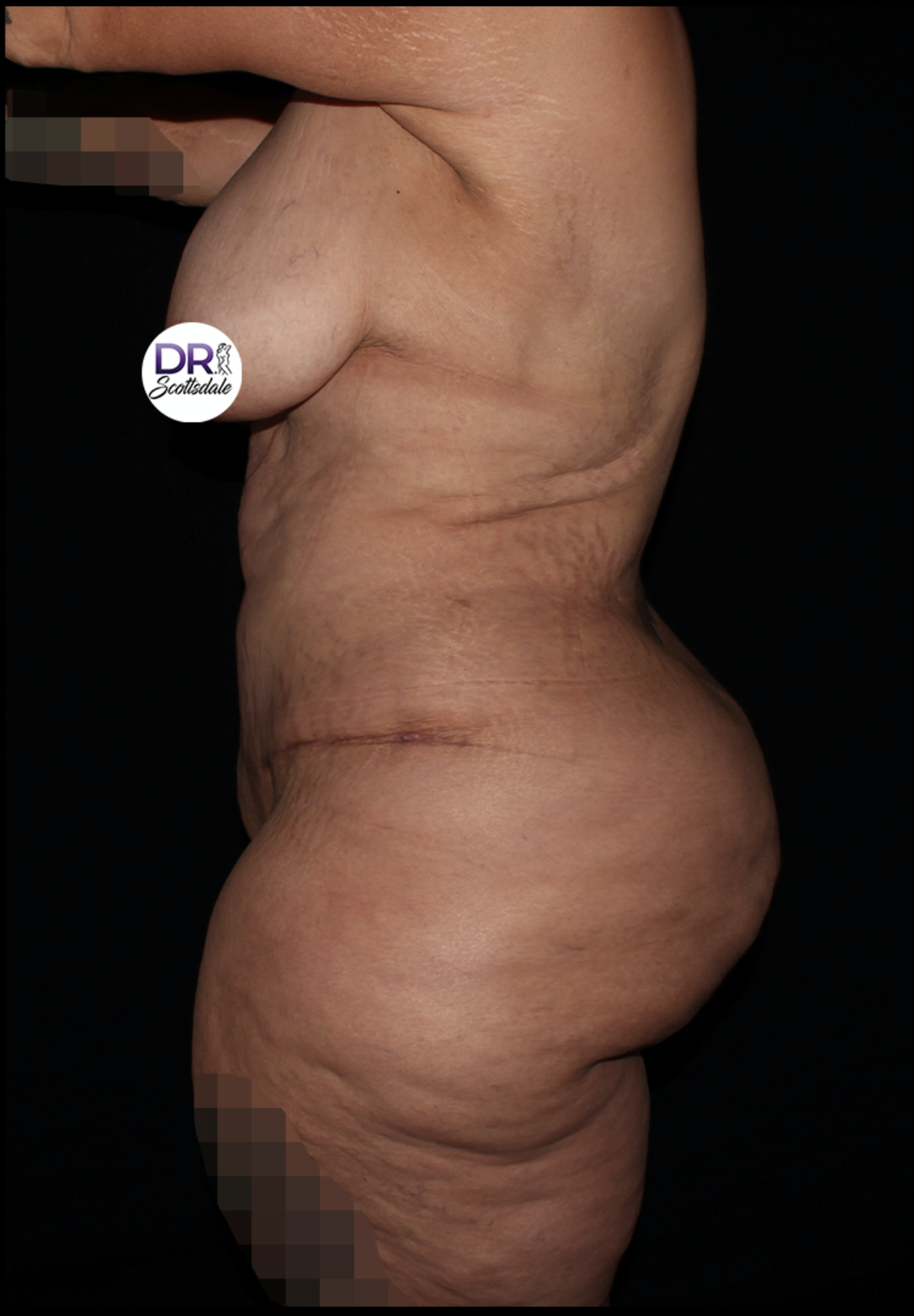 After After Weight Loss Surgery - Major Weight Loss Surgery