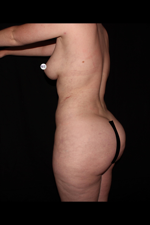 After Brazilian Butt Lift - Oblique