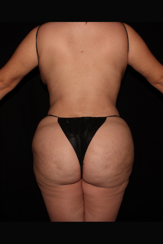 After Brazilian Butt Lift - Back