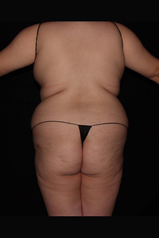 Before Brazilian Butt Lift - Back
