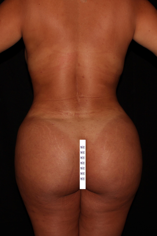 After Brazilian Butt Lift - High definition Vaser liposuction & Safer Brazilian Butt Lift.