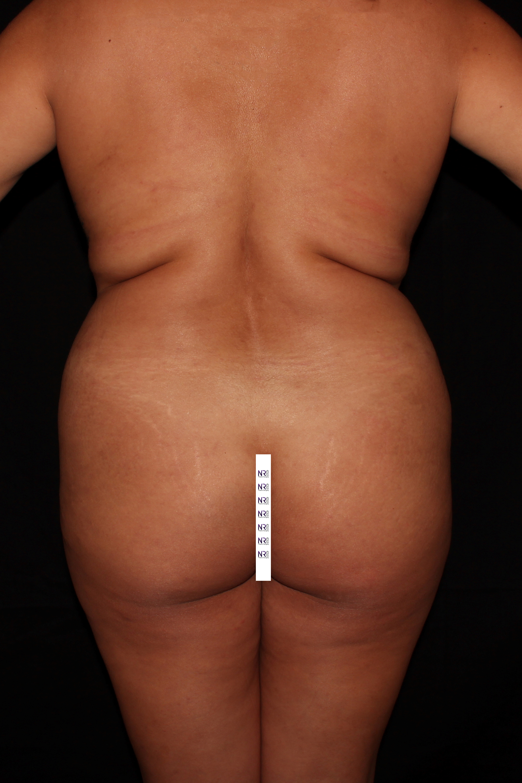 Before Brazilian Butt Lift - High definition Vaser liposuction & Safer Brazilian Butt Lift.
