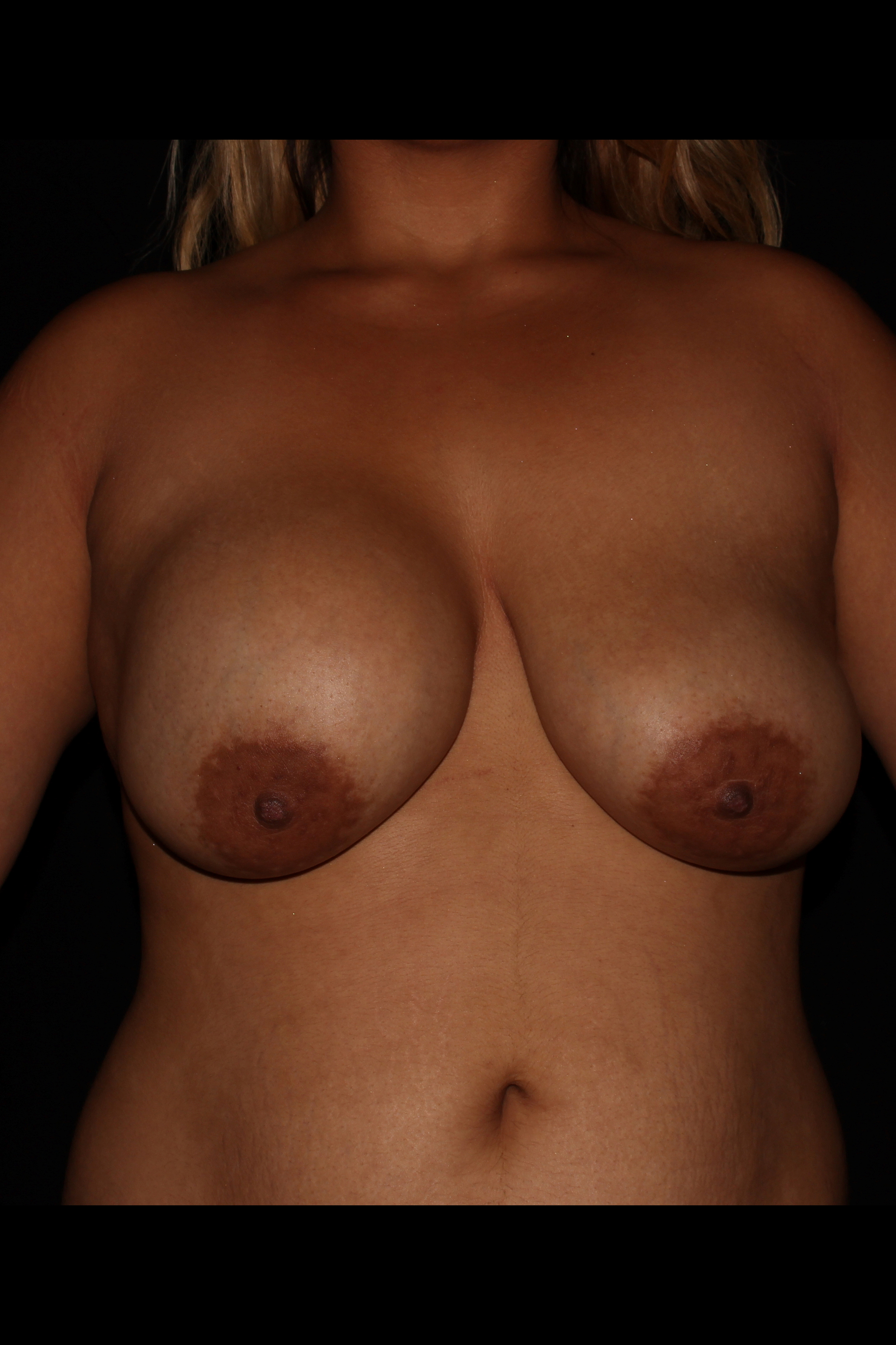 Before Breast Lift - BREAST LIFT WITH IMPLANTS