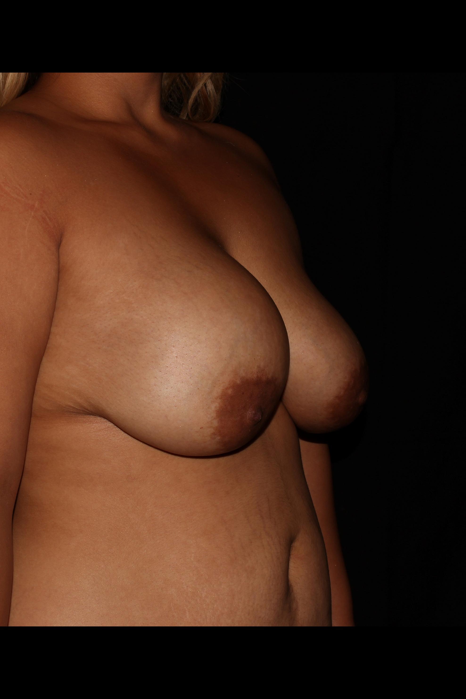 Before Breast Lift - Oblique